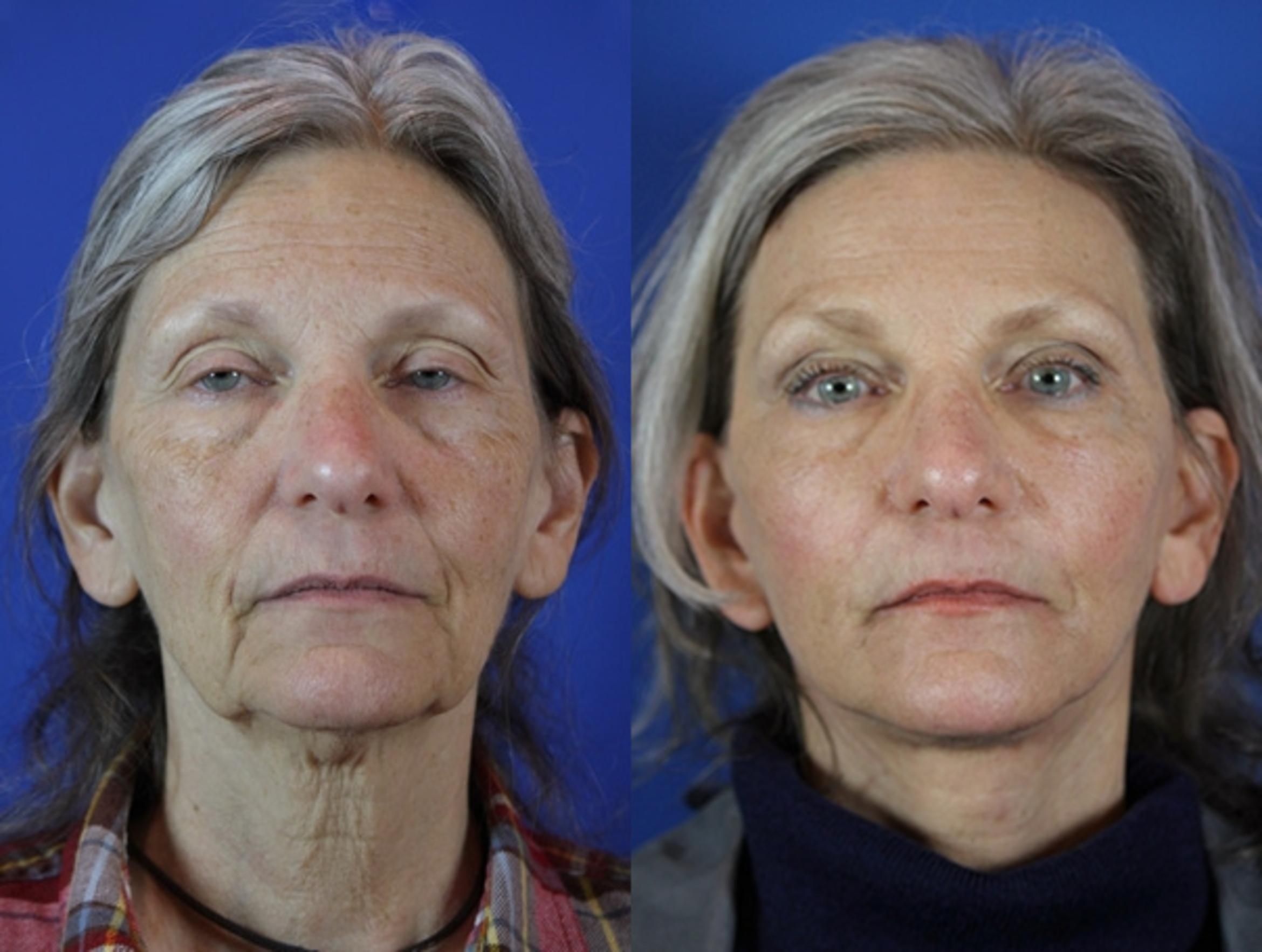 Facelift / Reflection Lift Case 31 Before & After Front | Brentwood, TN | Youthful Reflections
