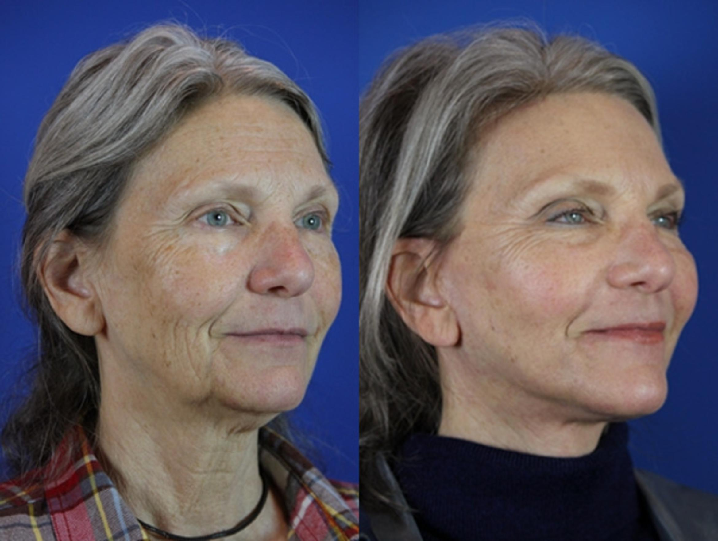 Facelift / Reflection Lift Case 31 Before & After Right Oblique | Brentwood, TN | Youthful Reflections