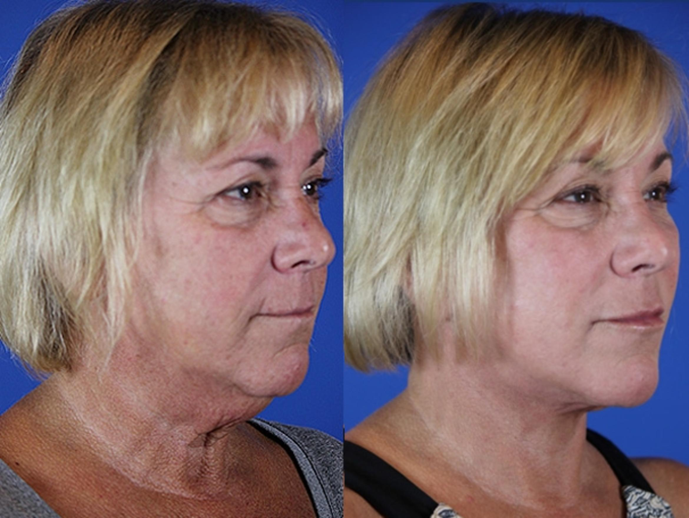 Facelift / Reflection Lift Case 33 Before & After Right Oblique | Brentwood, TN | Youthful Reflections