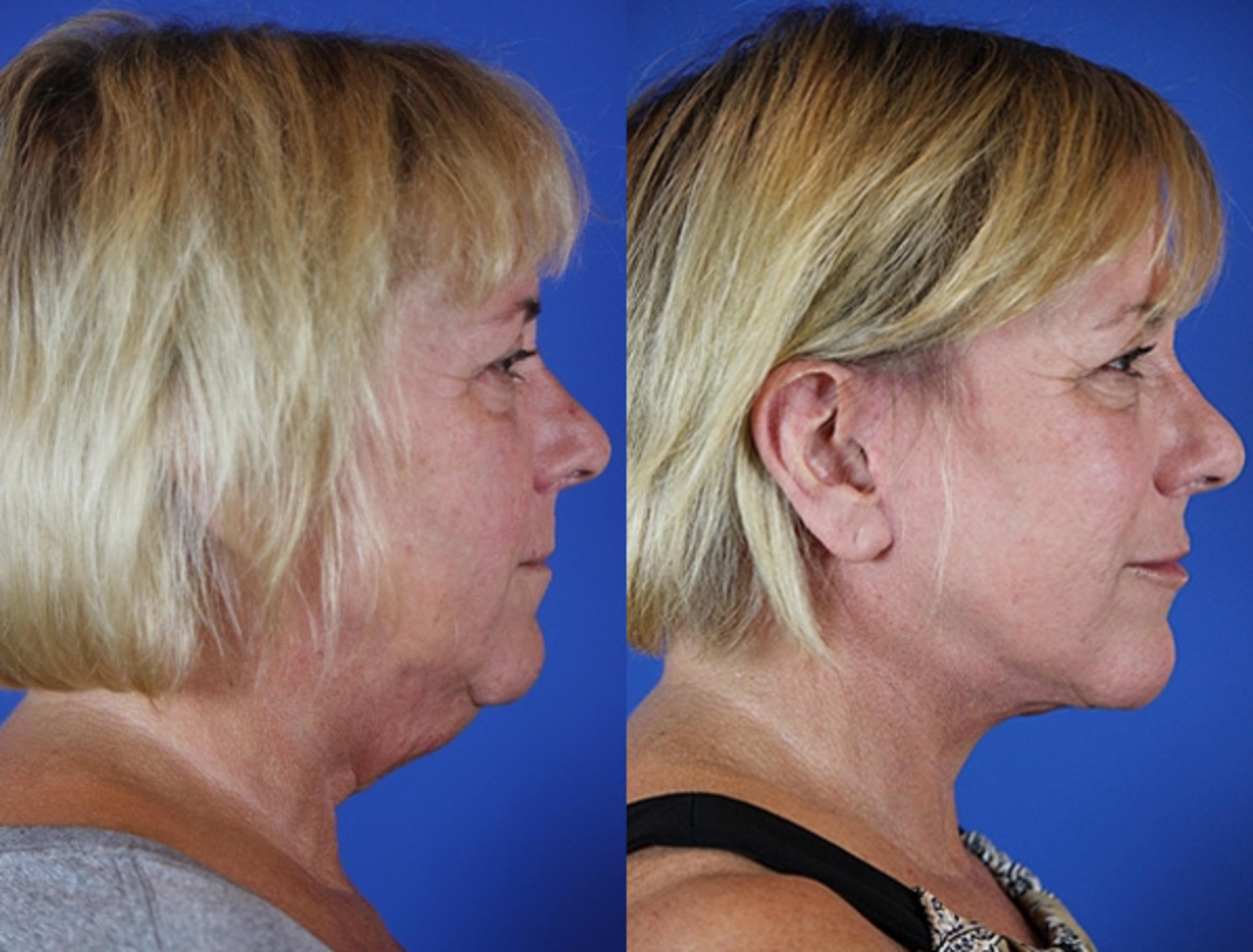 Facelift / Reflection Lift Case 33 Before & After Right Side | Brentwood, TN | Youthful Reflections