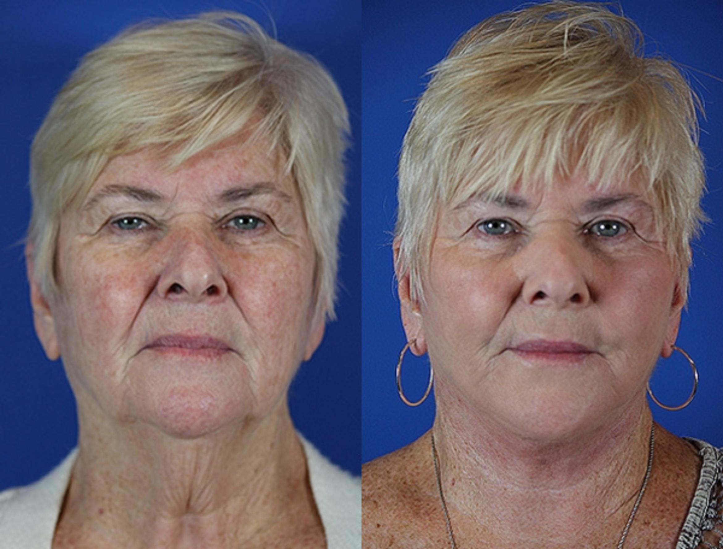 Facelift / Reflection Lift Case 37 Before & After Front | Brentwood, TN | Youthful Reflections