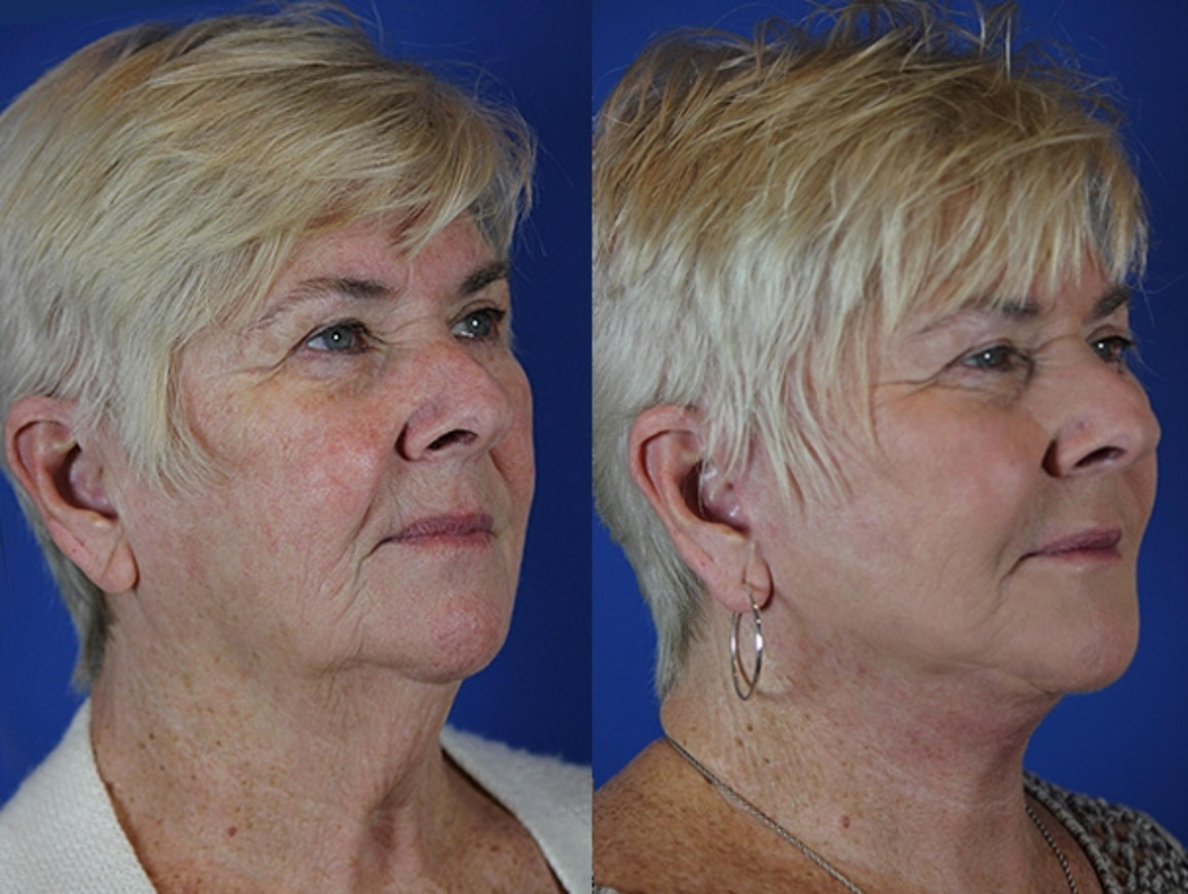 Facelift / Reflection Lift Case 37 Before & After Right Oblique | Brentwood, TN | Youthful Reflections
