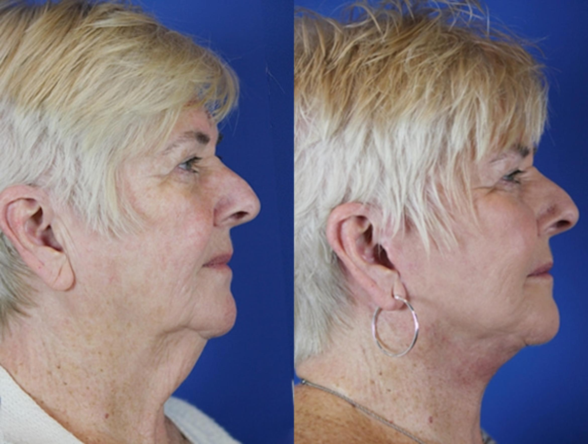 Facelift / Reflection Lift Case 37 Before & After Right Side | Brentwood, TN | Youthful Reflections