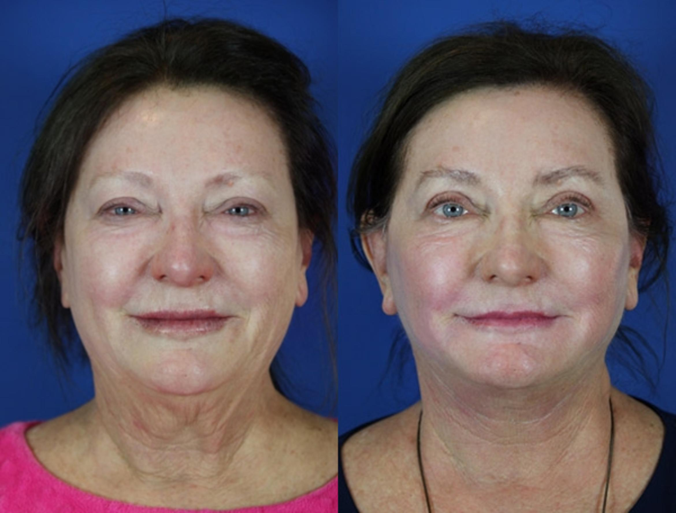Facelift / Reflection Lift Case 38 Before & After Front | Brentwood, TN | Youthful Reflections