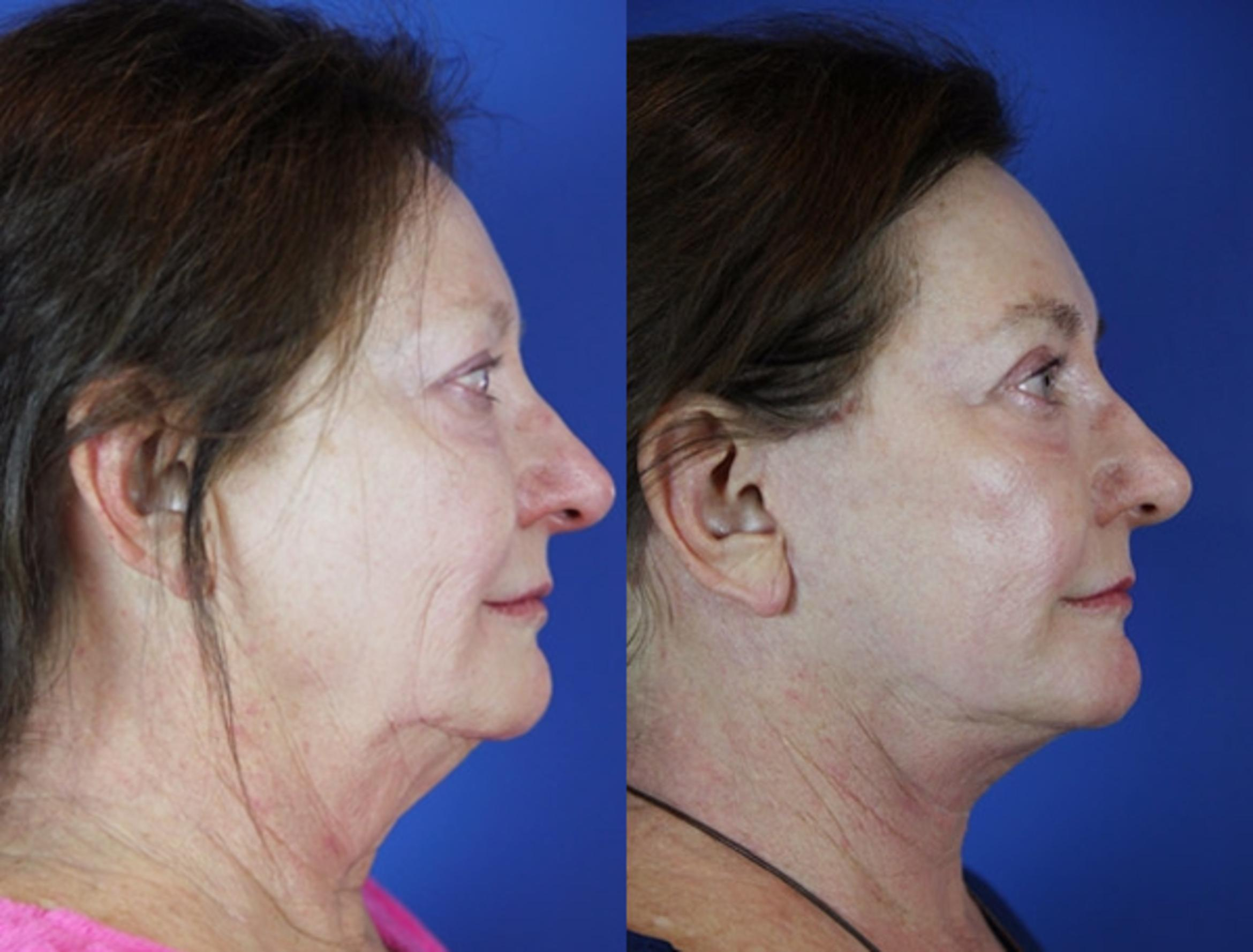 Facelift / Reflection Lift Case 38 Before & After Right Side | Brentwood, TN | Youthful Reflections