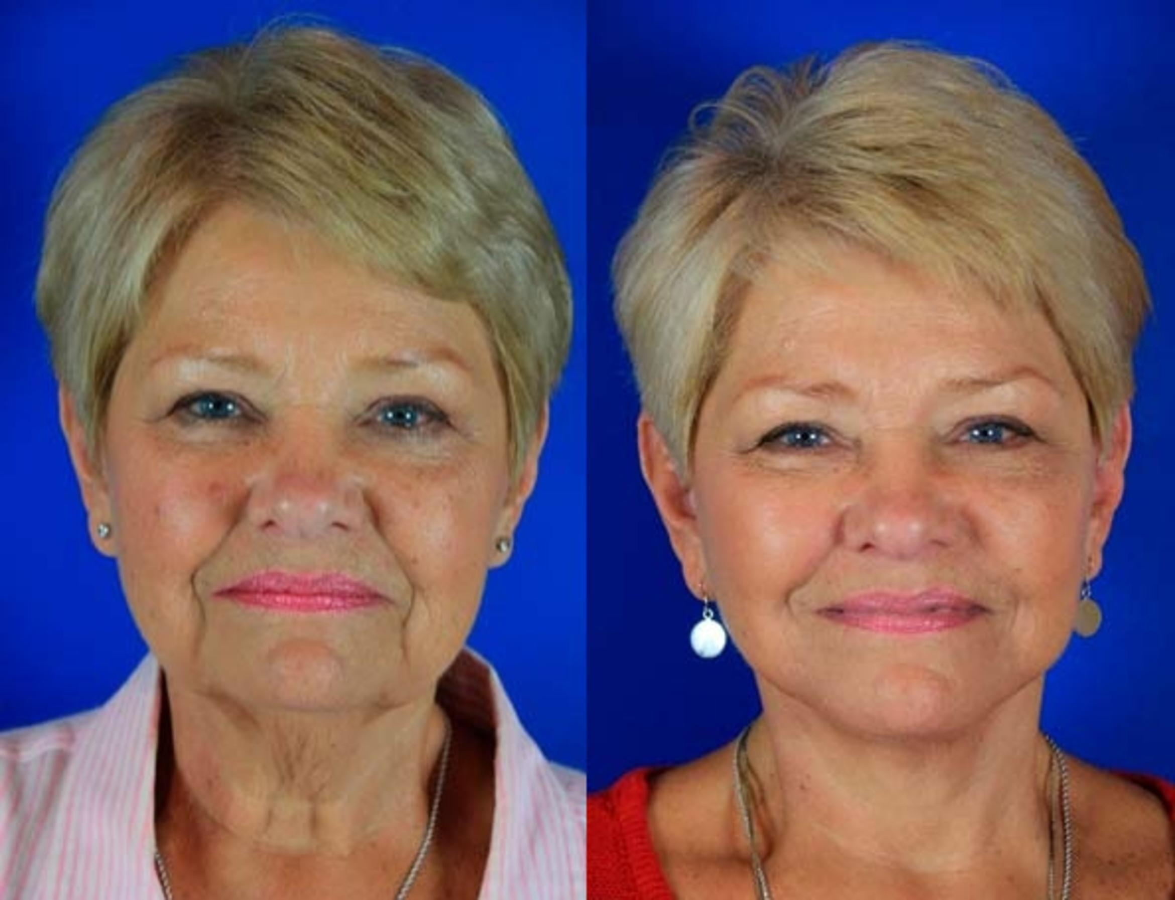 Facelift / Reflection Lift Case 4 Before & After Front | Nashville, TN | Youthful Reflections