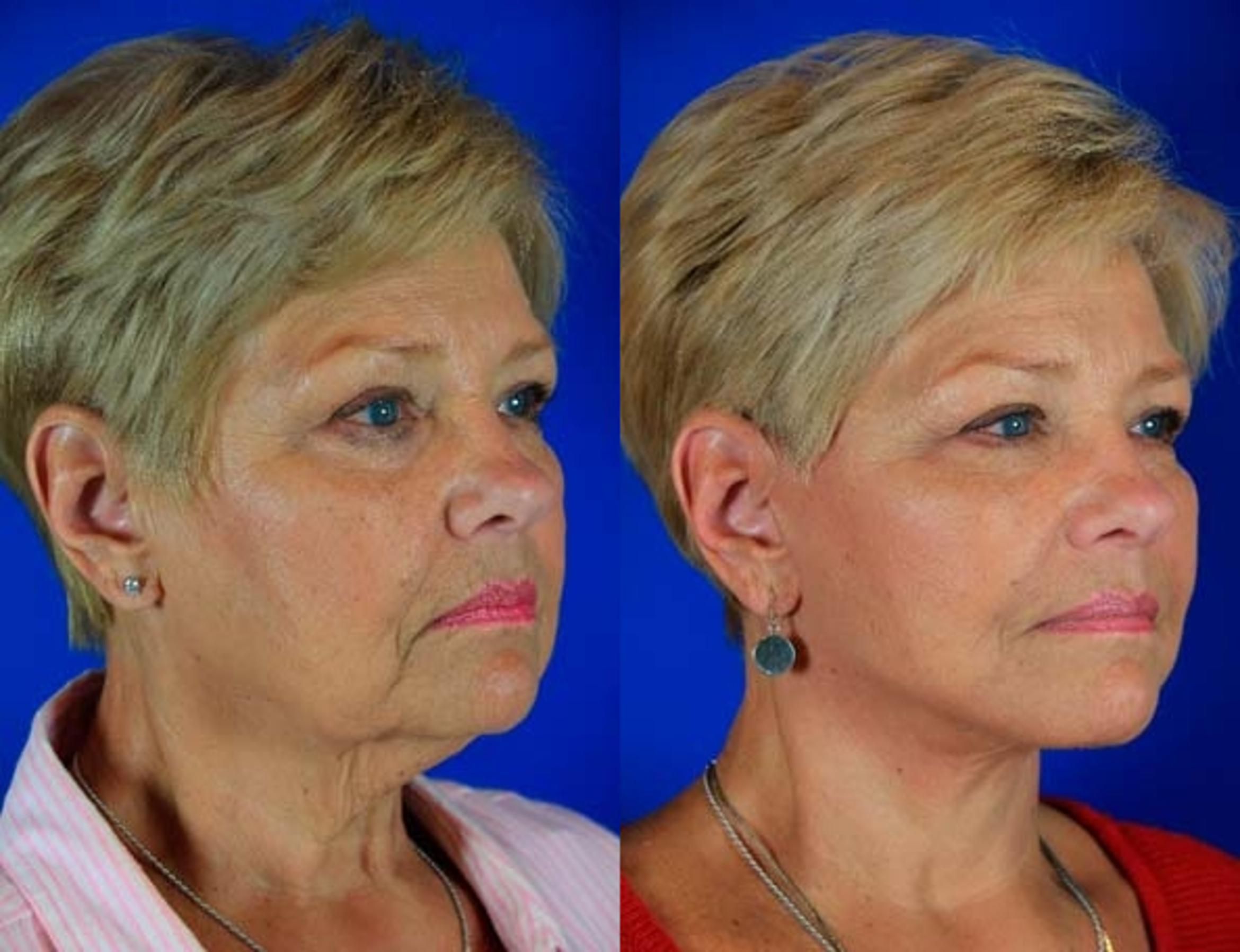 Facelift / Reflection Lift Case 4 Before & After Right Oblique | Nashville, TN | Youthful Reflections