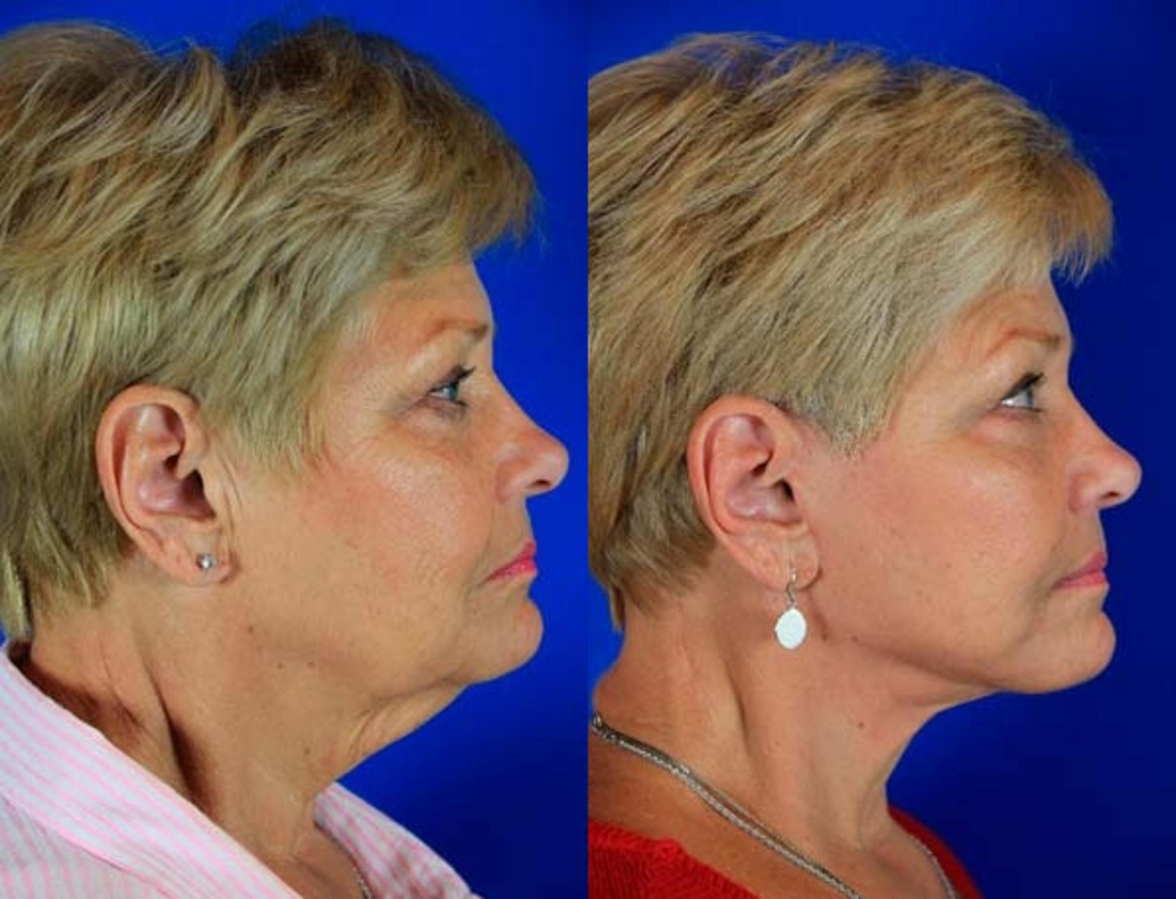 Facelift / Reflection Lift Case 4 Before & After Right Side | Nashville, TN | Youthful Reflections