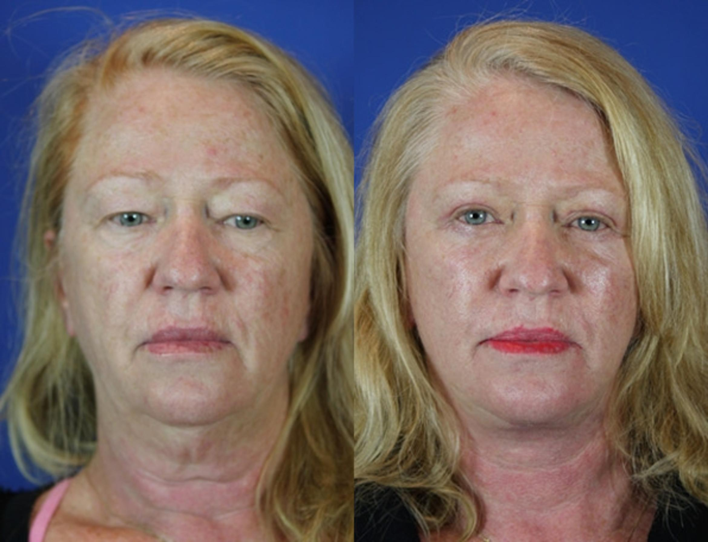 Facelift / Reflection Lift Case 42 Before & After Front | Brentwood, TN | Youthful Reflections