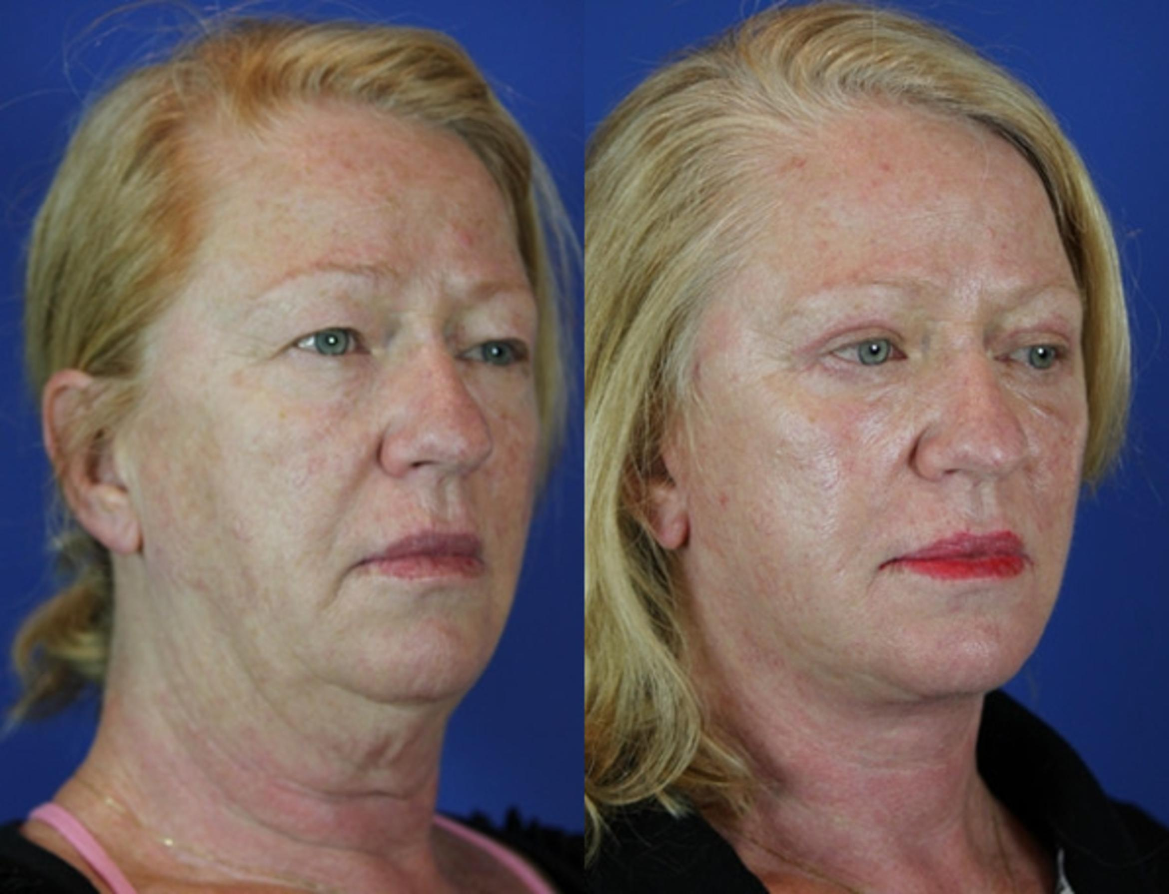 Facelift / Reflection Lift Case 42 Before & After Right Oblique | Brentwood, TN | Youthful Reflections