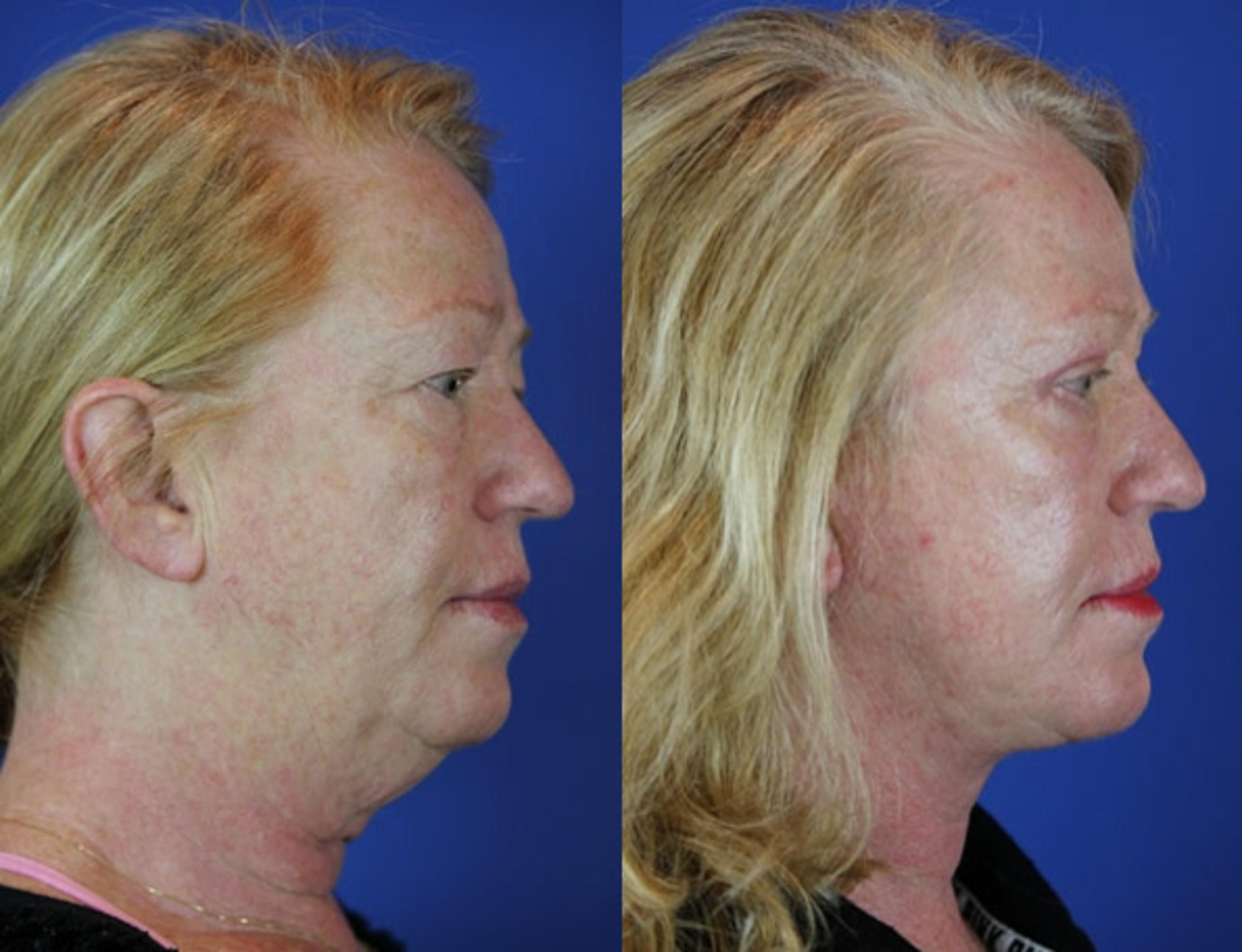 Facelift / Reflection Lift Case 42 Before & After Right Side | Brentwood, TN | Youthful Reflections