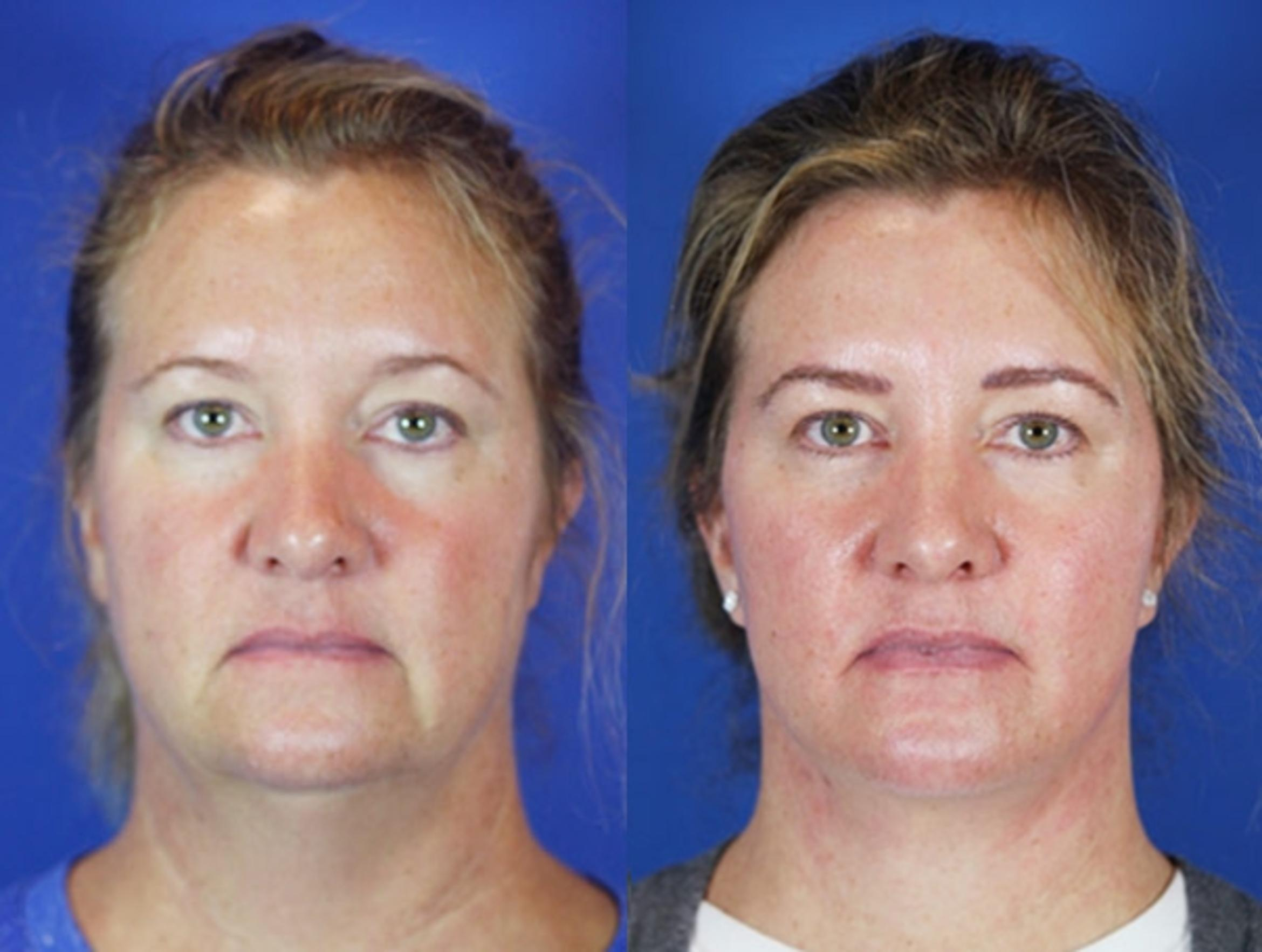 Facelift / Reflection Lift Case 44 Before & After Front | Brentwood, TN | Youthful Reflections