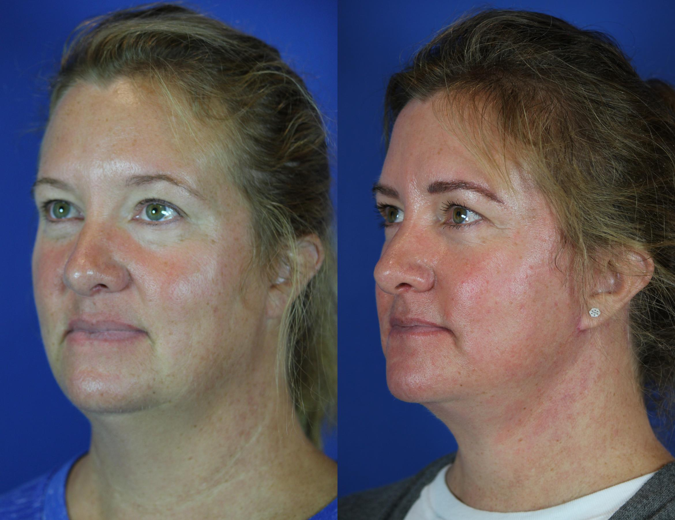 Facelift / Reflection Lift Case 44 Before & After Left Oblique | Brentwood, TN | Youthful Reflections