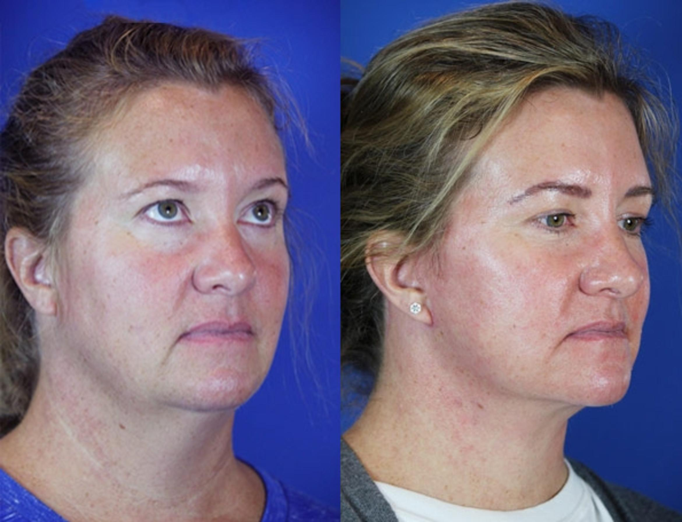 Facelift / Reflection Lift Case 44 Before & After Right Oblique | Brentwood, TN | Youthful Reflections