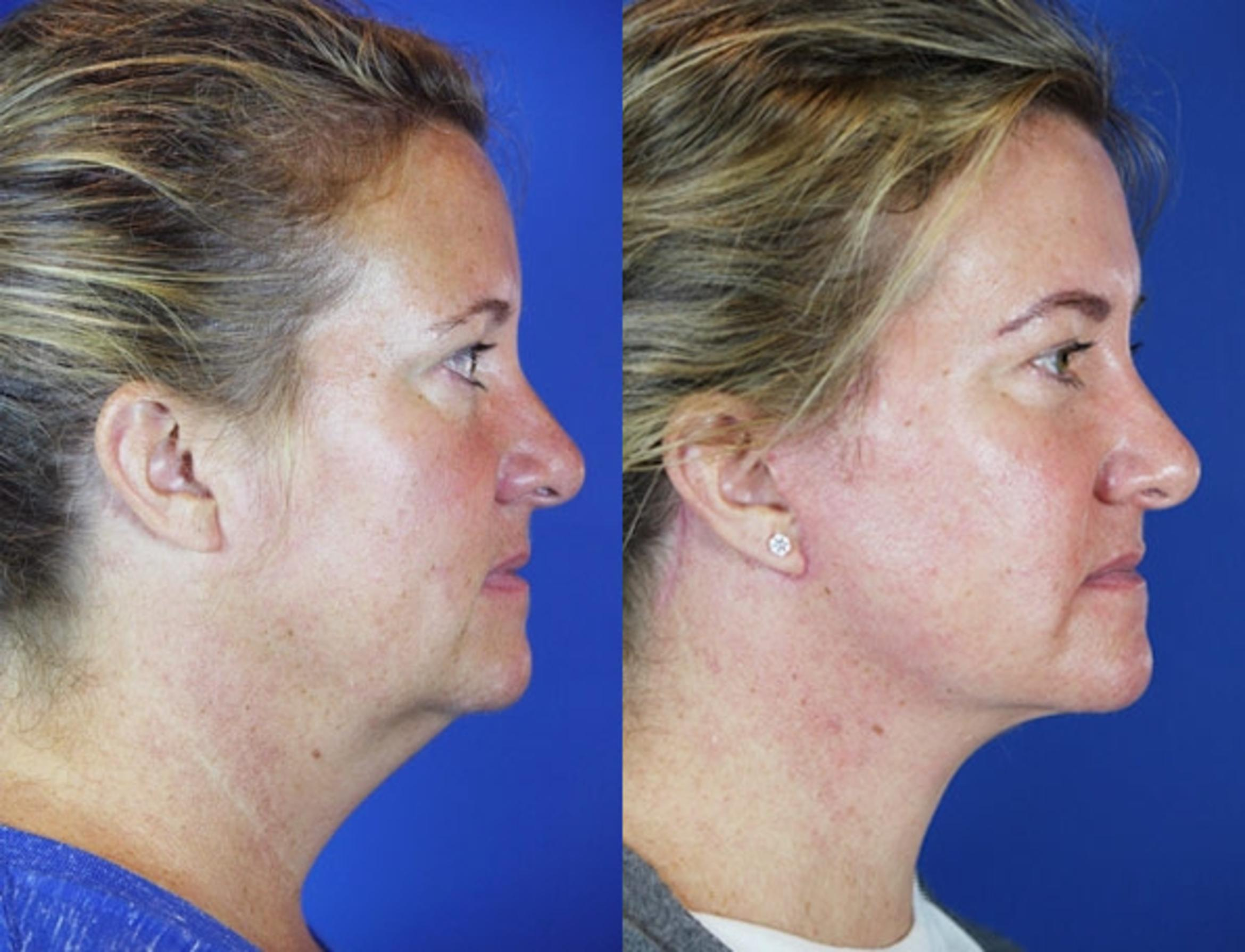 Facelift / Reflection Lift Case 44 Before & After Right Side | Brentwood, TN | Youthful Reflections