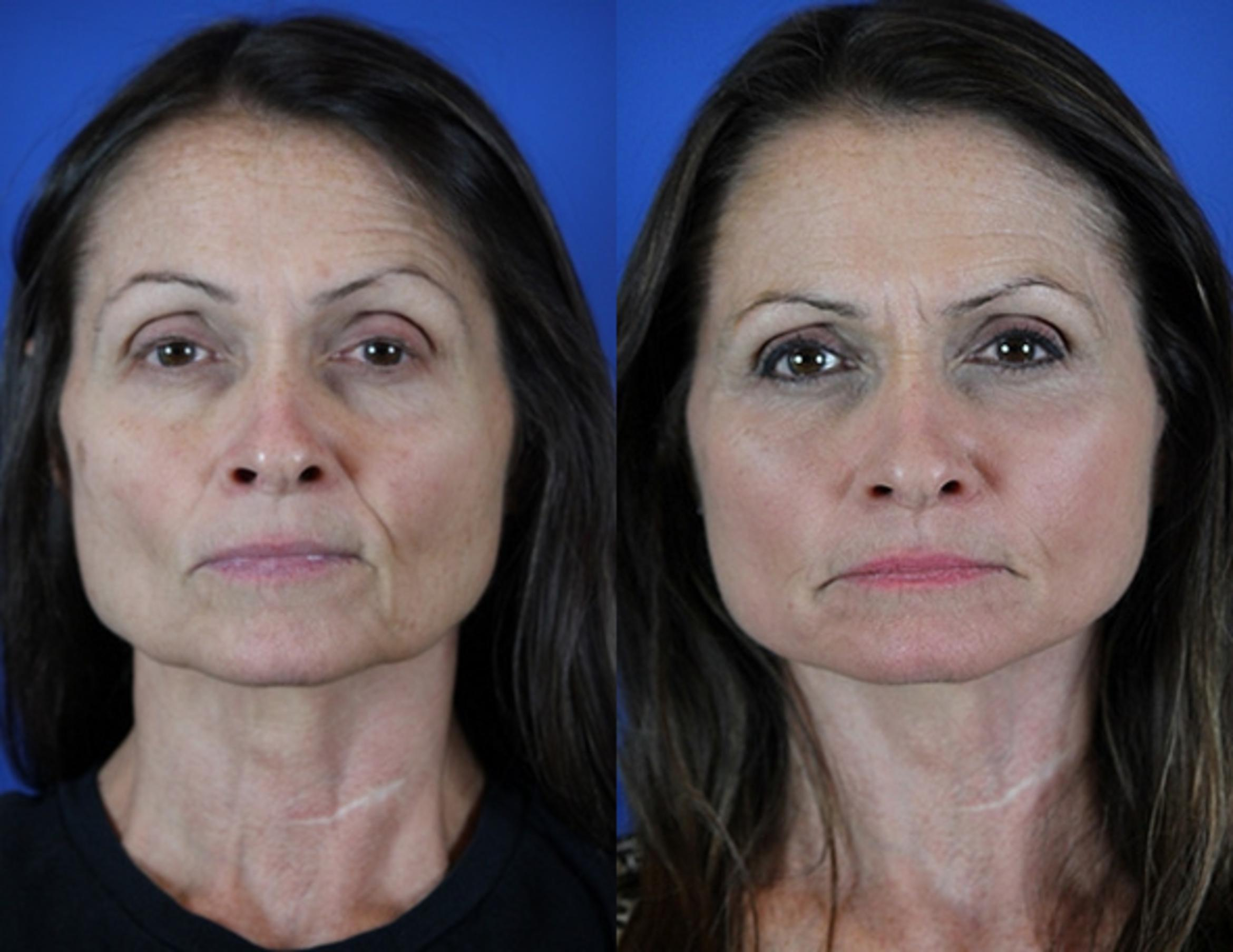 Facelift / Reflection Lift Case 45 Before & After Front | Brentwood, TN | Youthful Reflections