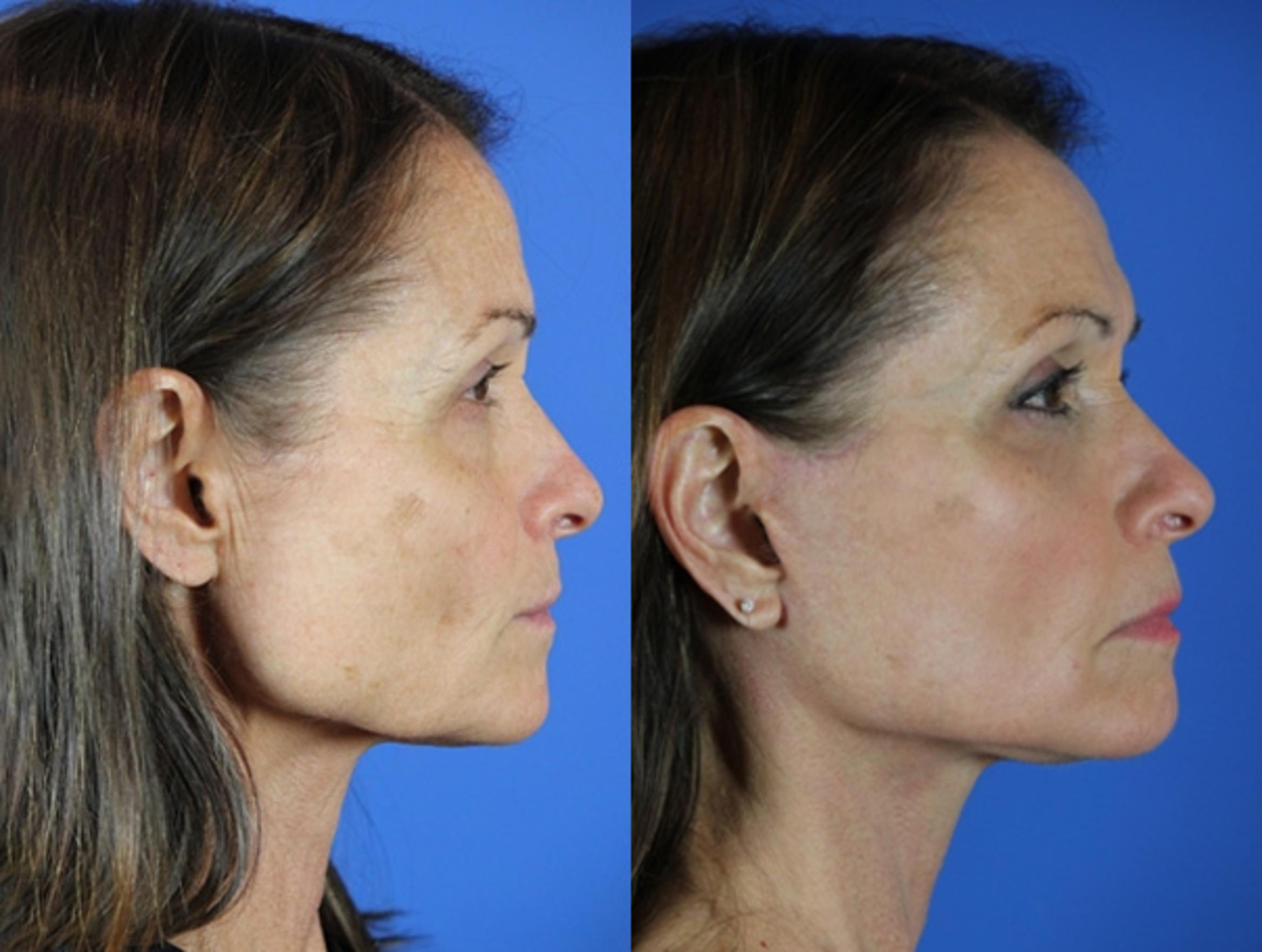 Facelift / Reflection Lift Case 45 Before & After Right Side | Brentwood, TN | Youthful Reflections