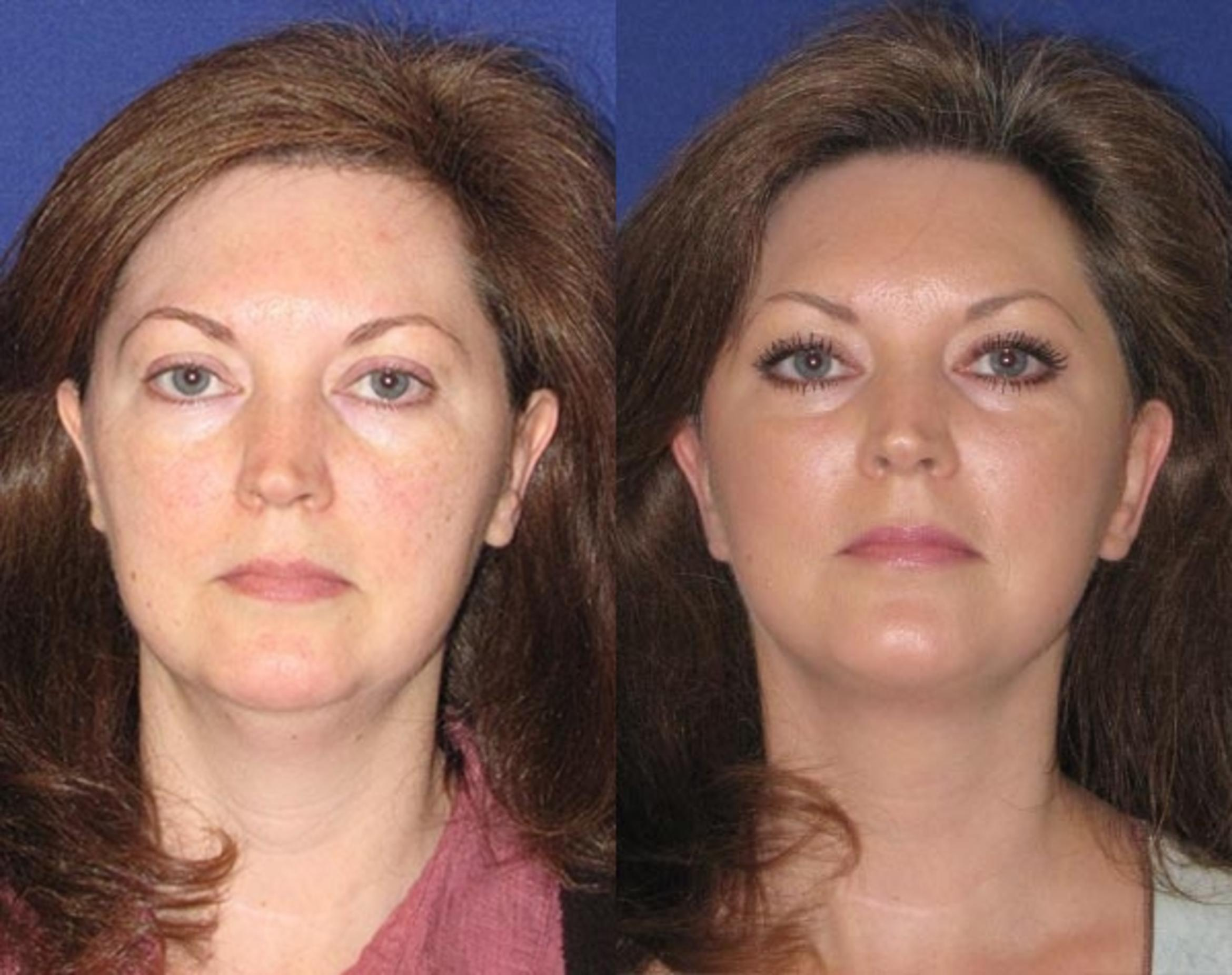 Facelift / Reflection Lift Case 48 Before & After Front | Brentwood, TN | Youthful Reflections