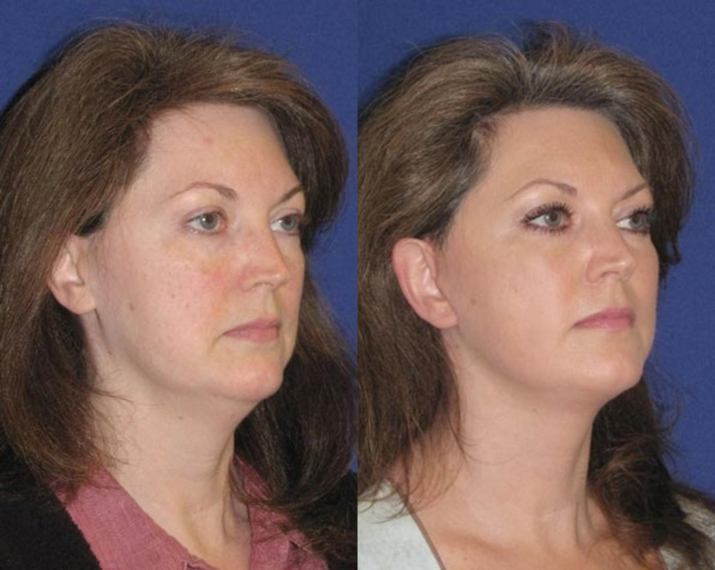 Facelift / Reflection Lift Case 48 Before & After Right Oblique | Brentwood, TN | Youthful Reflections