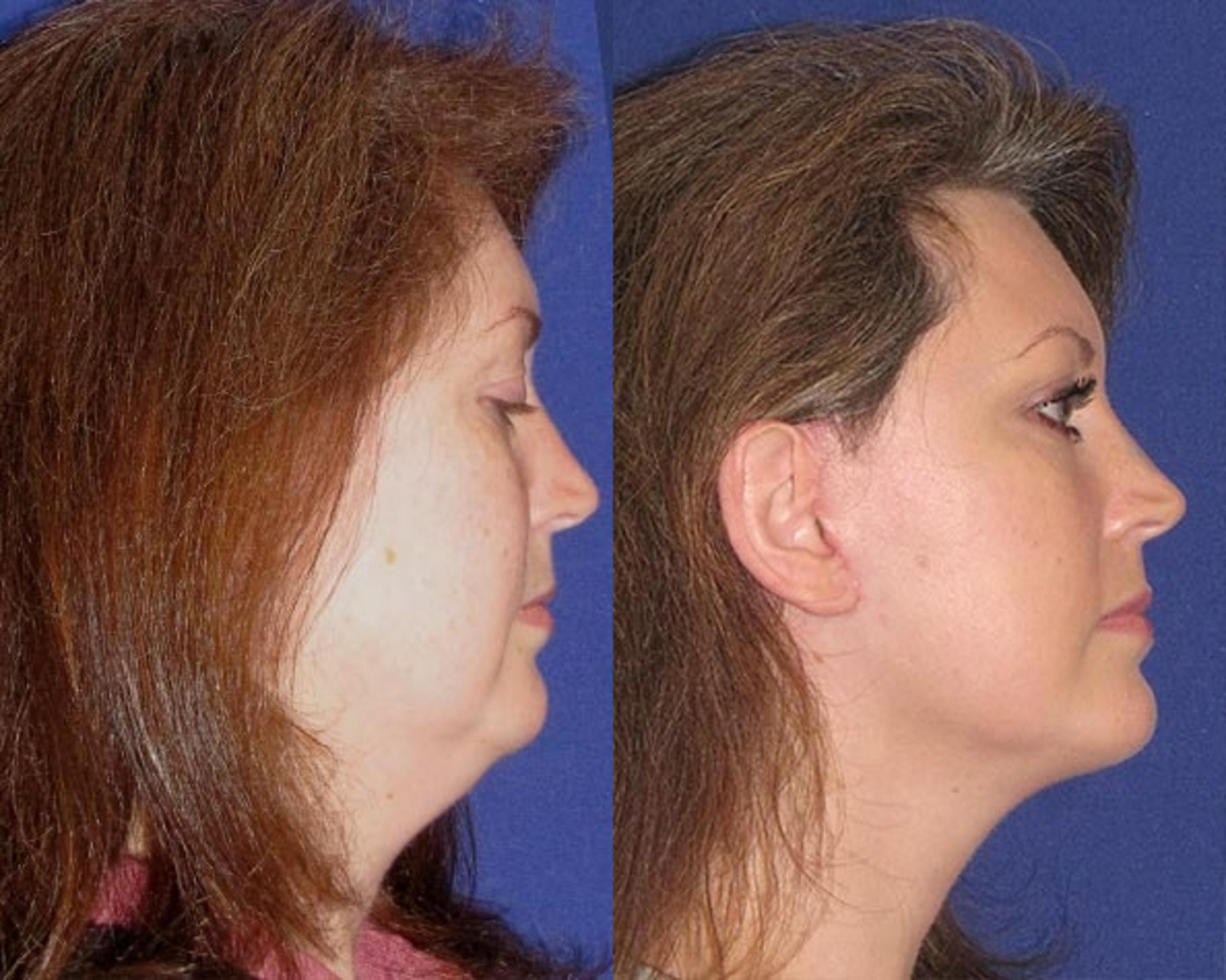 Facelift / Reflection Lift Case 48 Before & After Right Side | Brentwood, TN | Youthful Reflections
