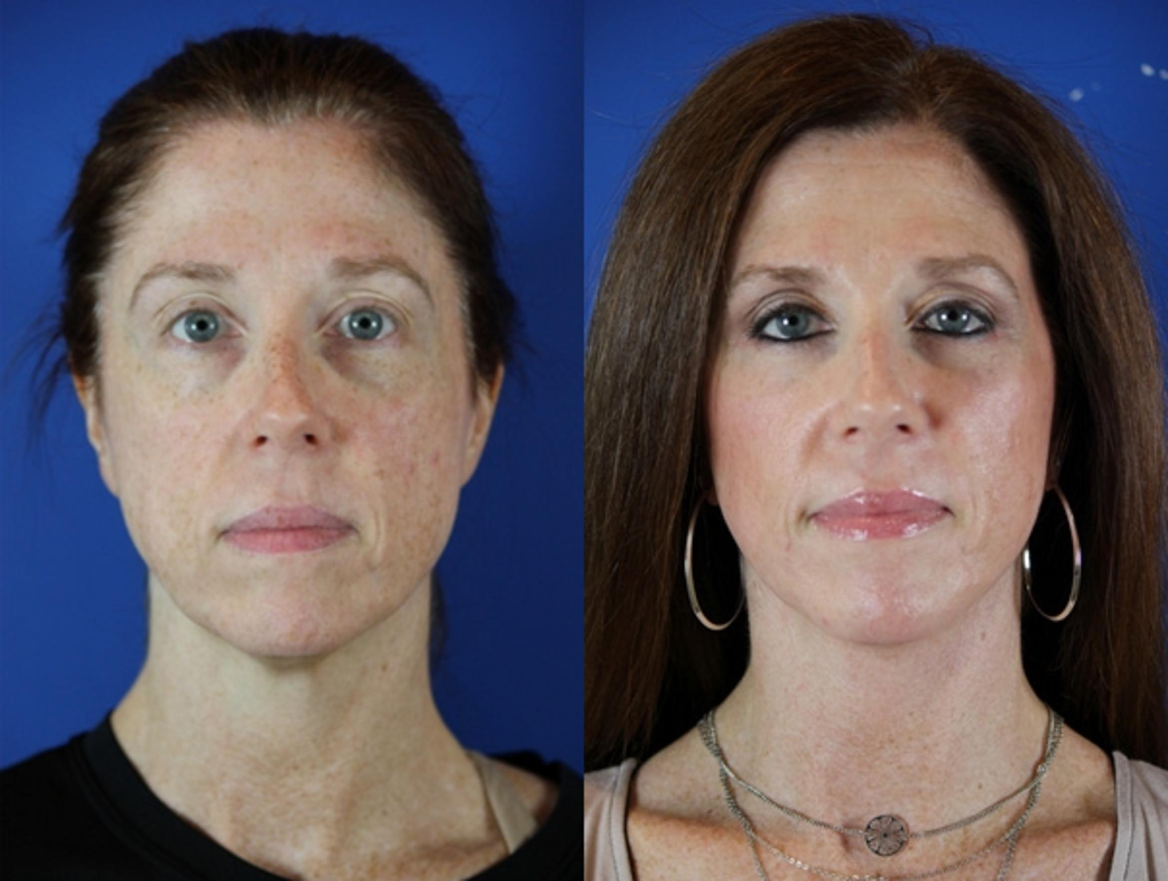 Facelift / Reflection Lift Case 49 Before & After Front | Brentwood, TN | Youthful Reflections