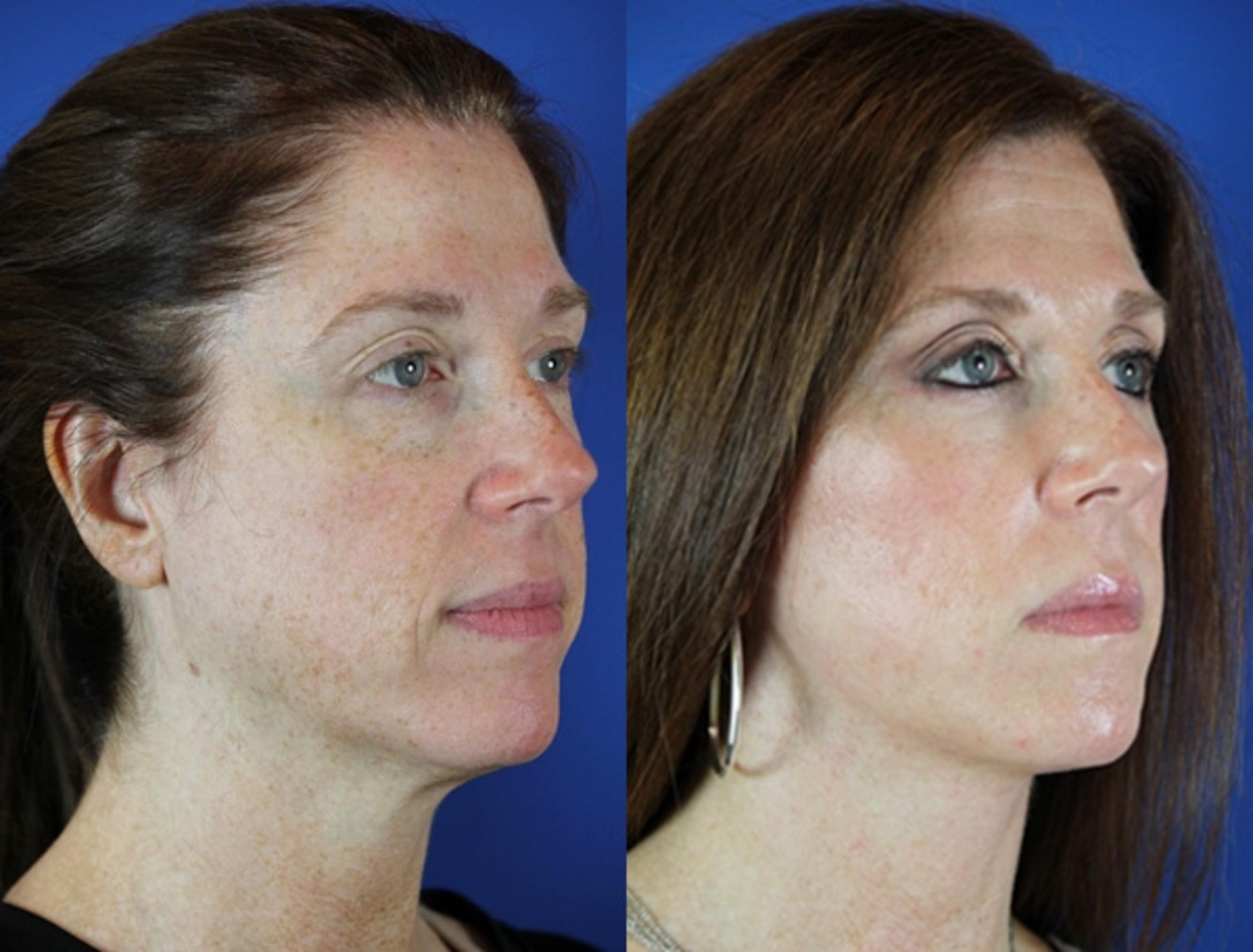 Facelift / Reflection Lift Case 49 Before & After Right Oblique | Nashville, TN | Youthful Reflections