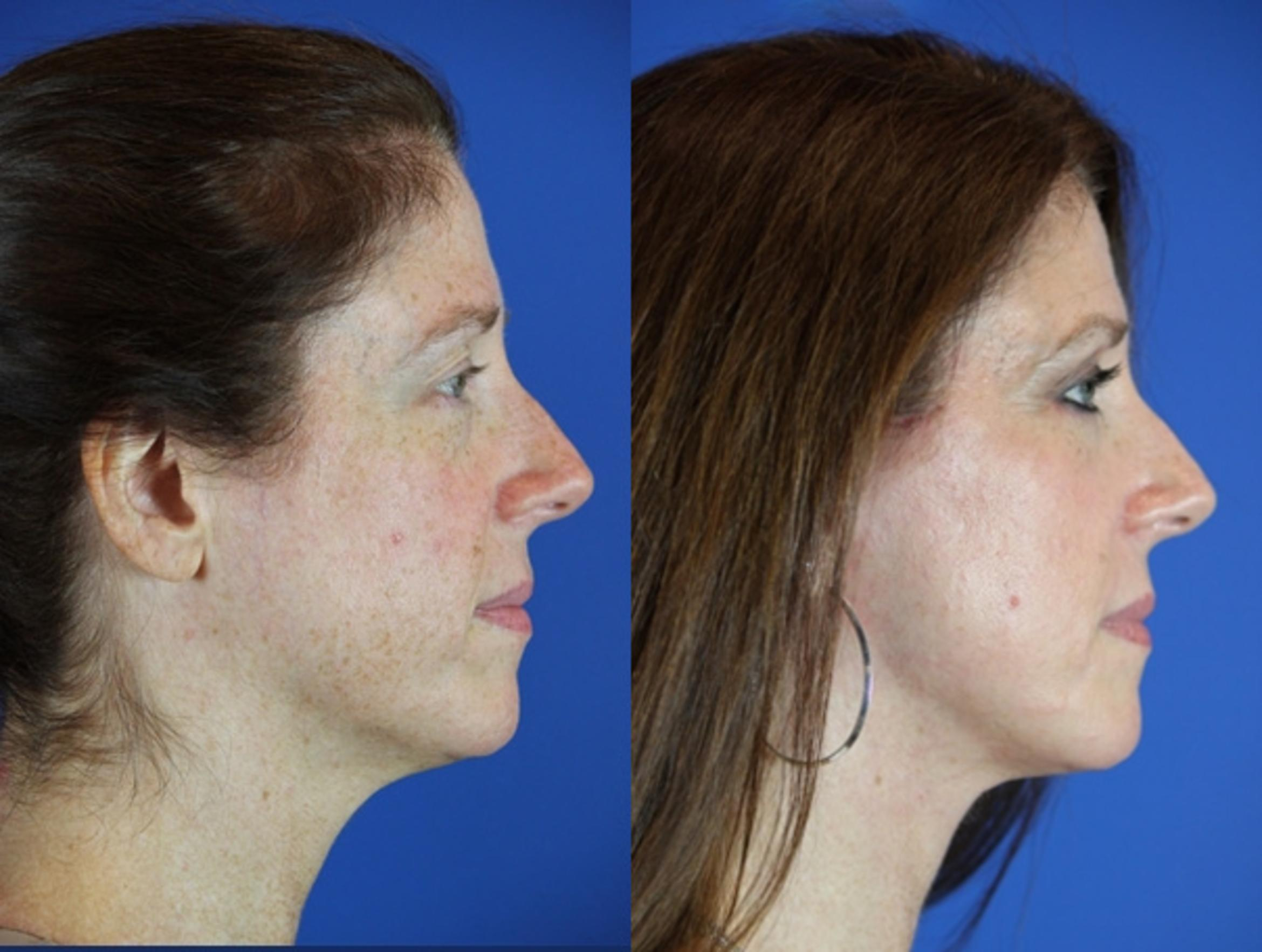 Facelift / Reflection Lift Case 49 Before & After Right Side | Brentwood, TN | Youthful Reflections