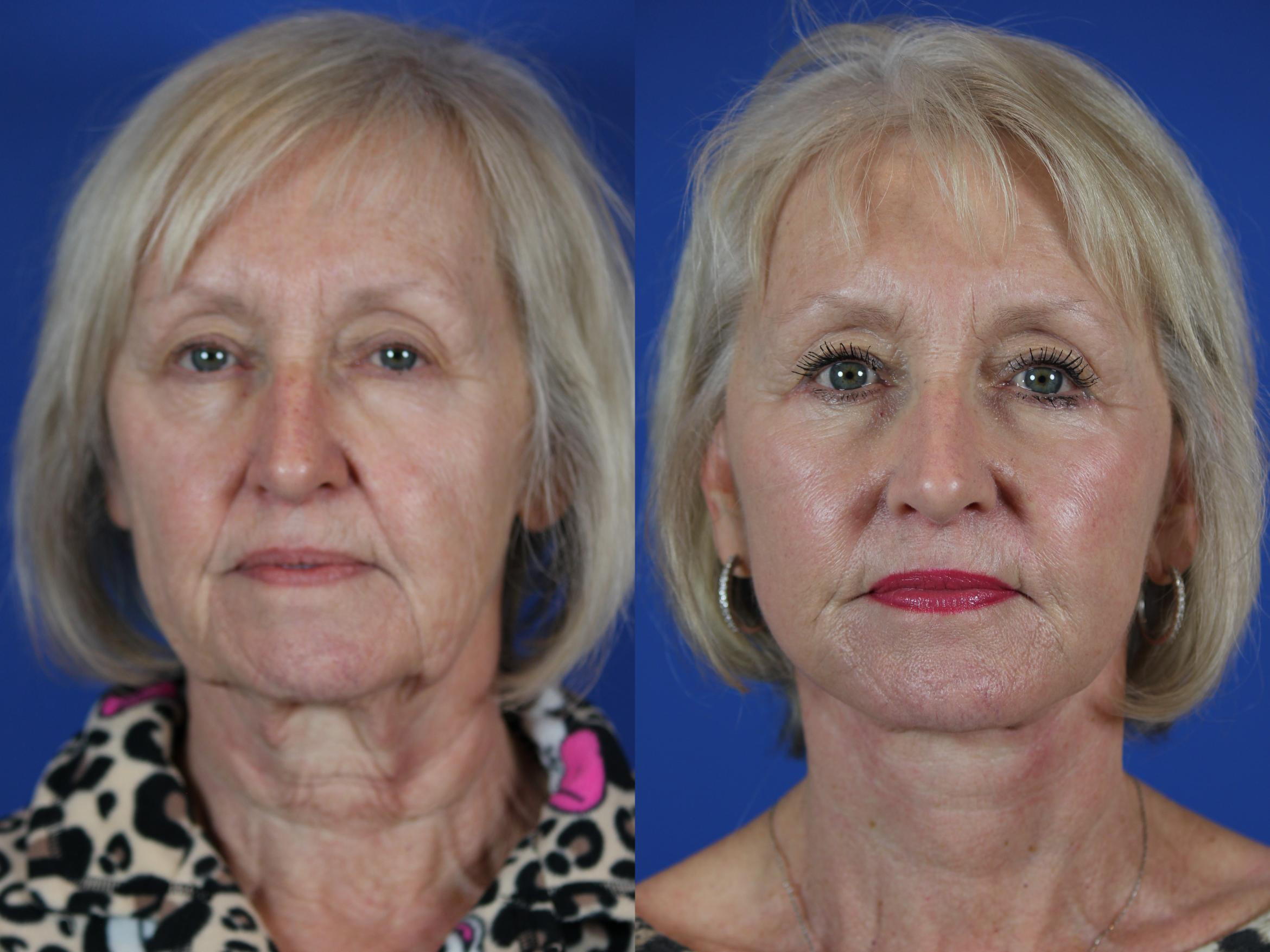 Facelift / Reflection Lift Case 50 Before & After Front | Brentwood, TN | Youthful Reflections
