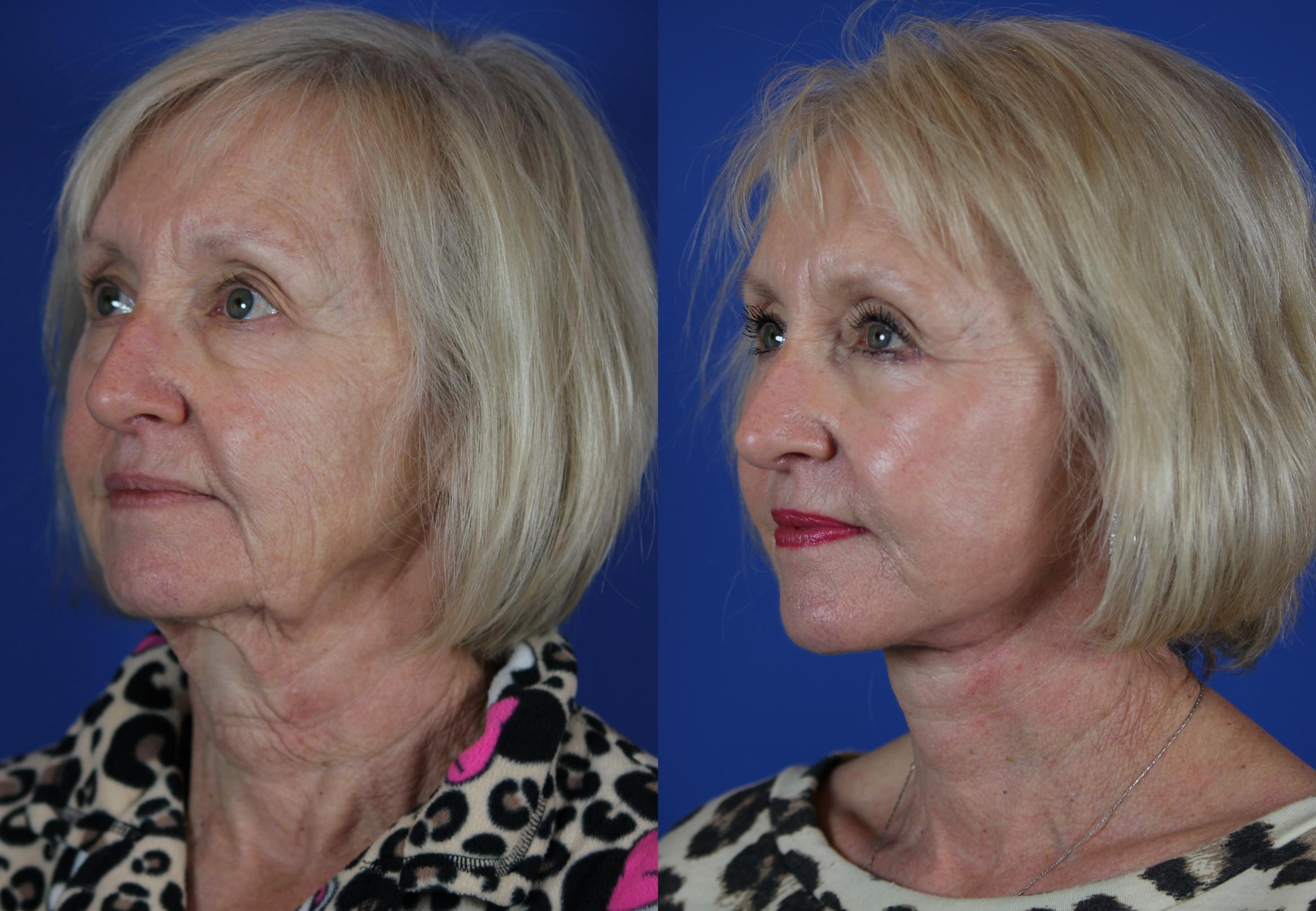Facelift / Reflection Lift Case 50 Before & After Left Oblique | Brentwood, TN | Youthful Reflections