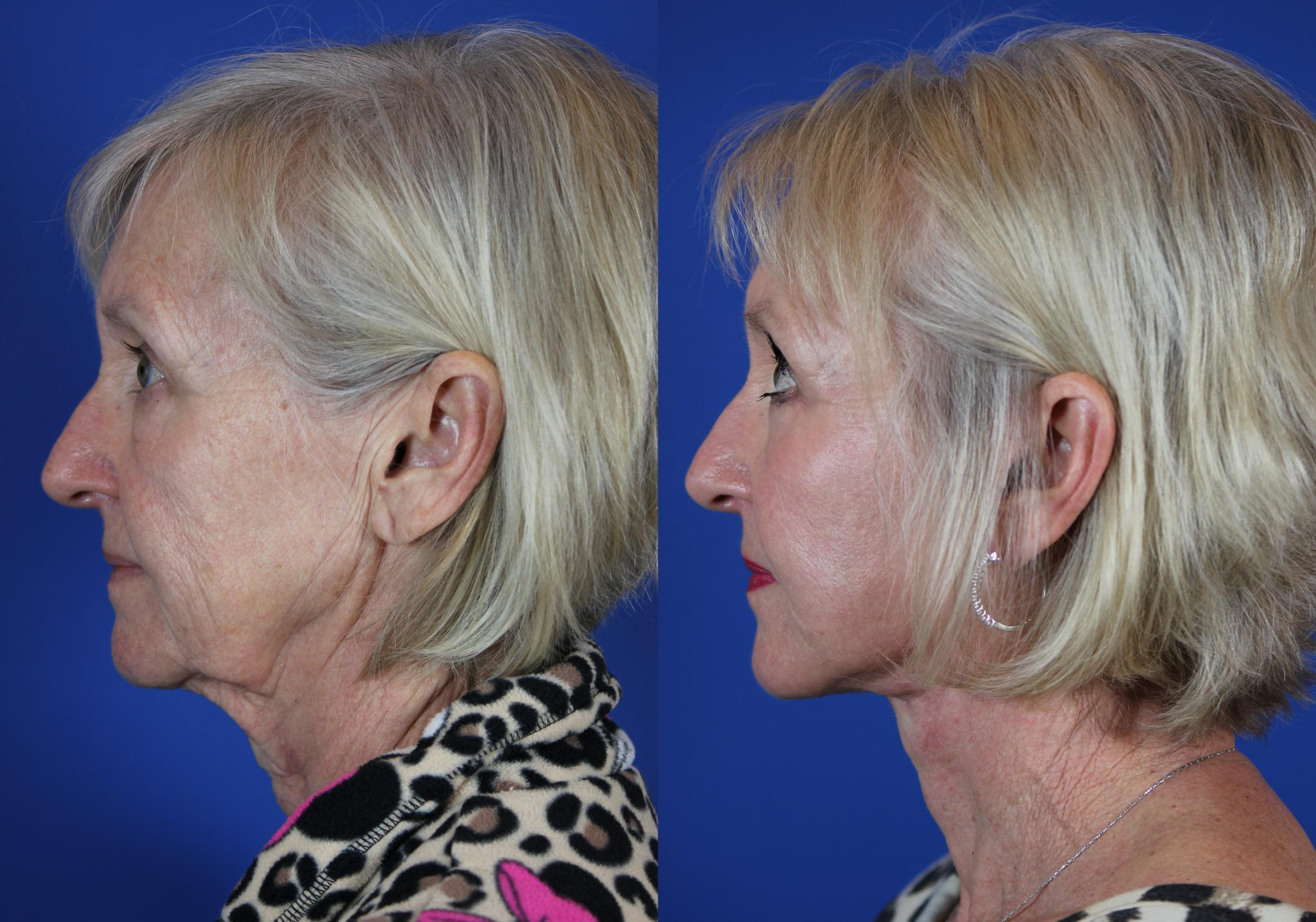 Facelift / Reflection Lift Case 50 Before & After Left Side | Brentwood, TN | Youthful Reflections