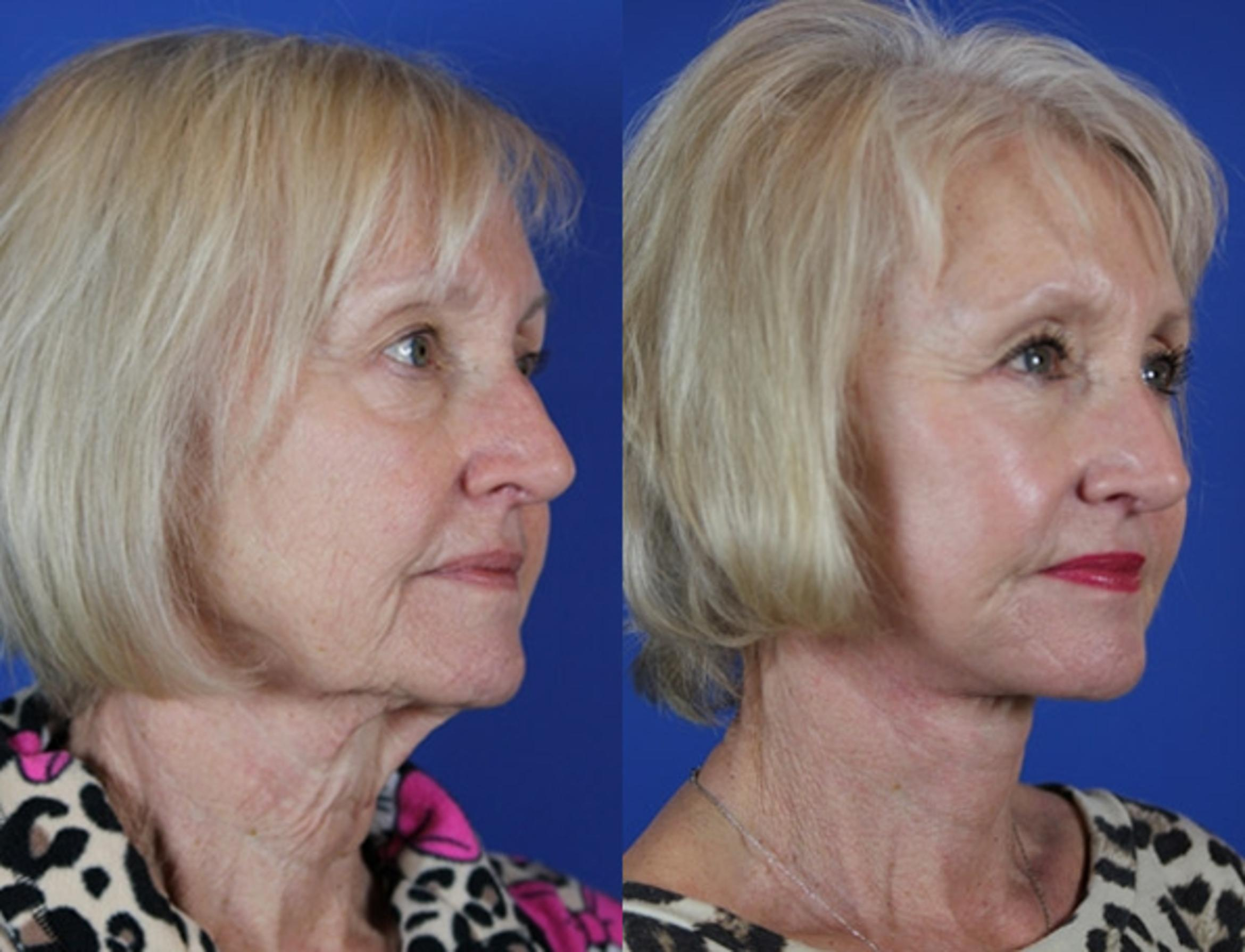 Facelift / Reflection Lift Case 50 Before & After Right Oblique | Brentwood, TN | Youthful Reflections