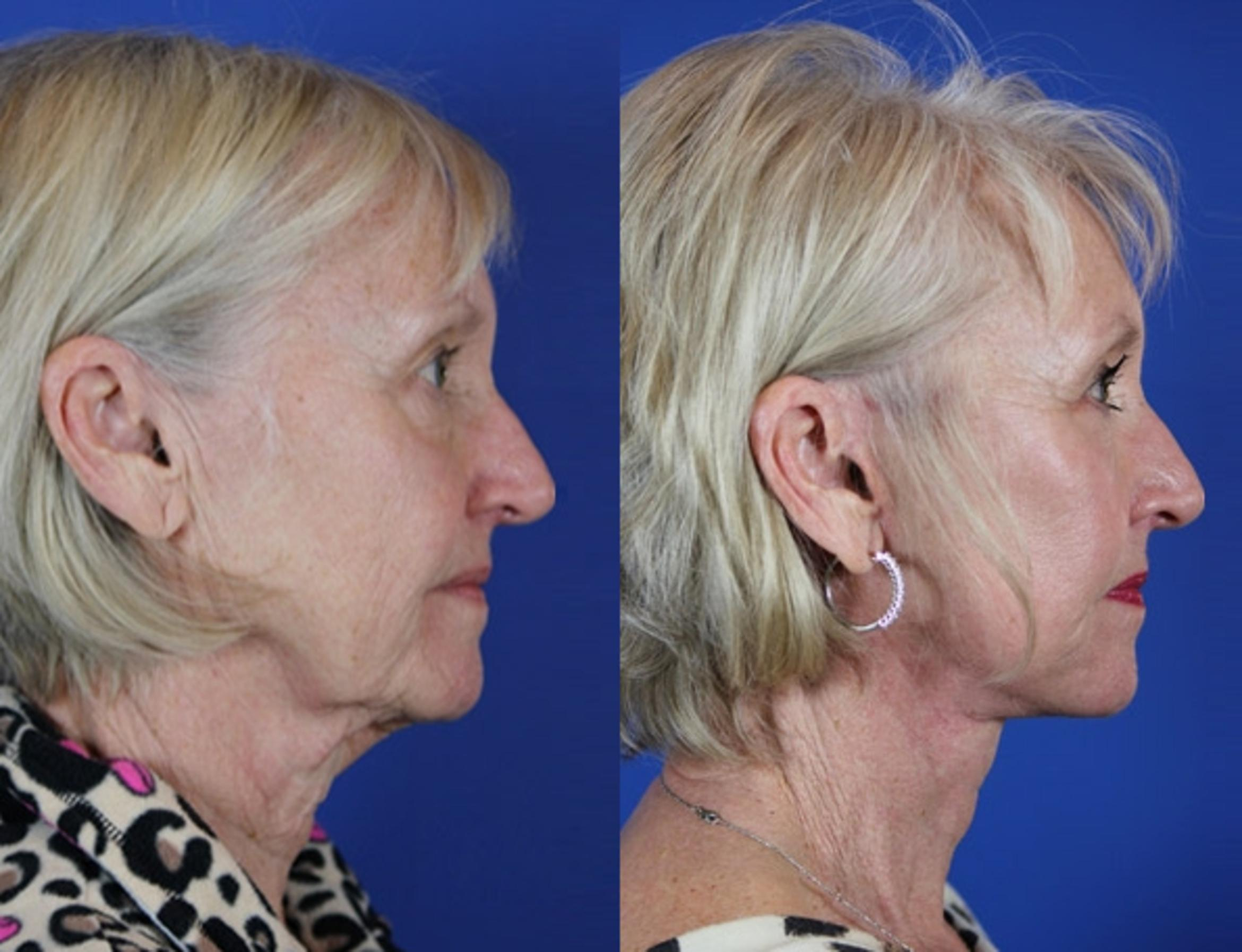 Facelift / Reflection Lift Case 50 Before & After Right Side | Brentwood, TN | Youthful Reflections