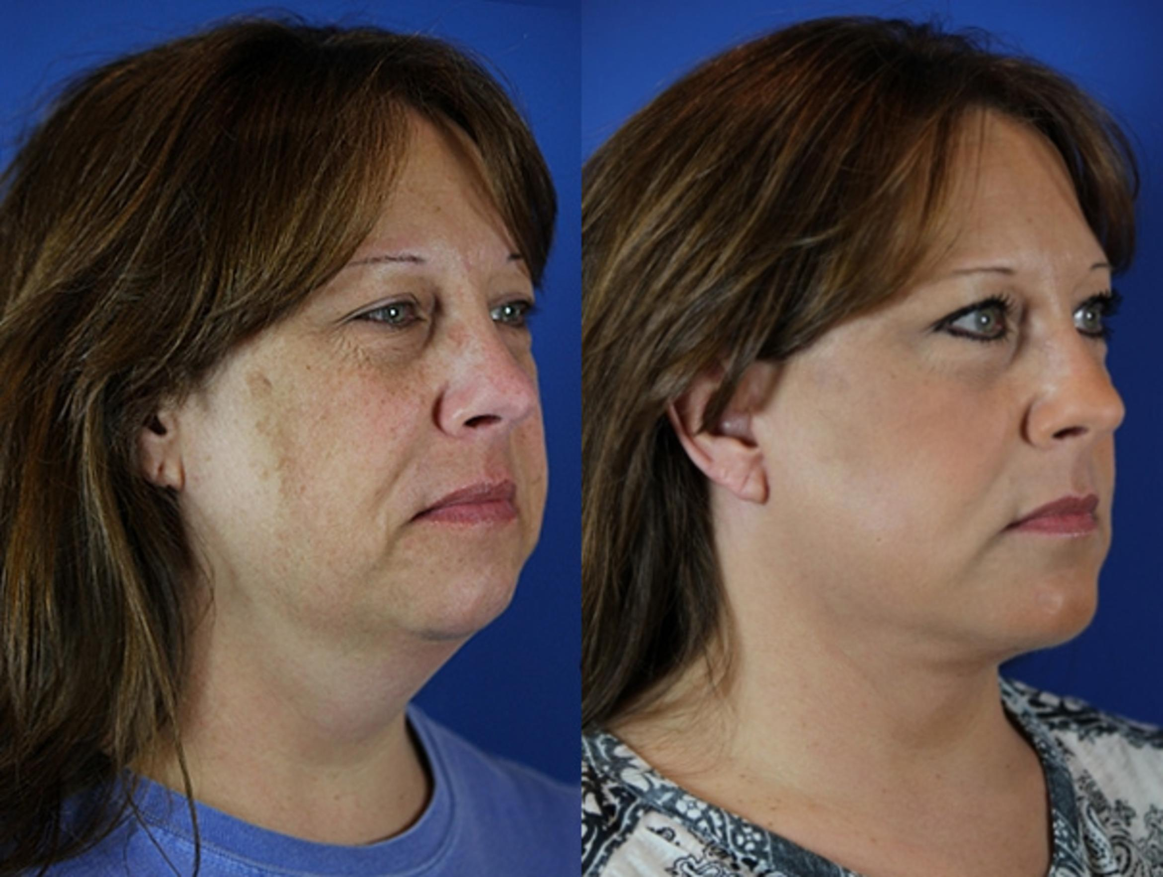 Facelift / Reflection Lift Case 51 Before & After Right Oblique | Brentwood, TN | Youthful Reflections
