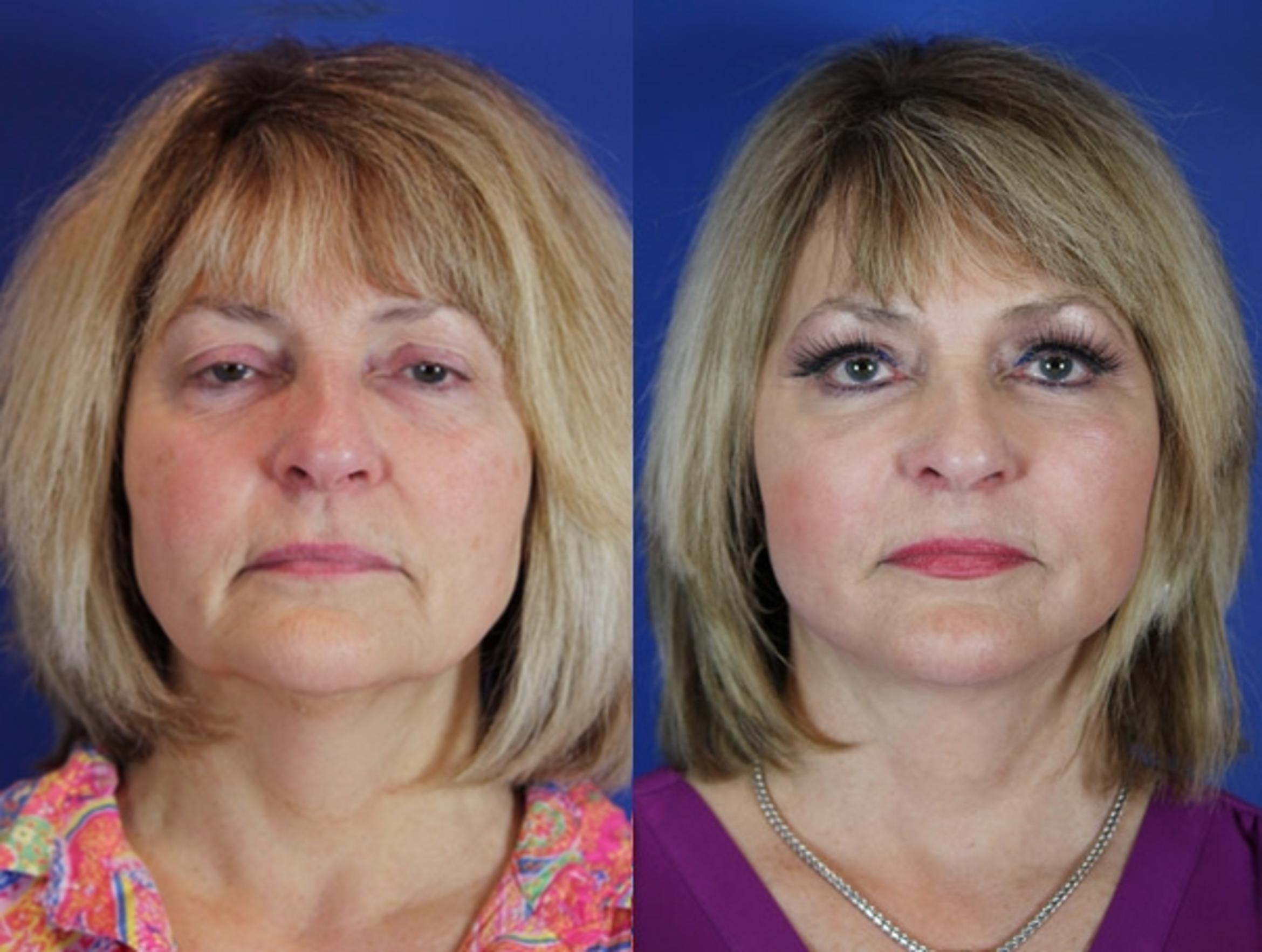 Facelift / Reflection Lift Case 54 Before & After Front | Brentwood, TN | Youthful Reflections