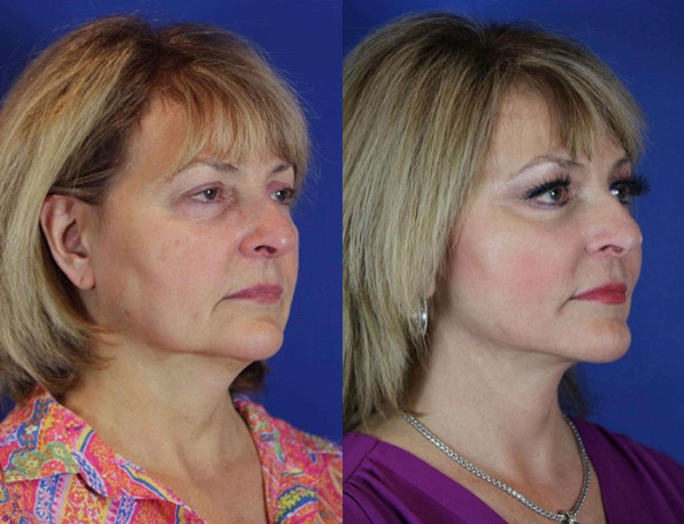 Facelift / Reflection Lift Case 54 Before & After Right Oblique | Brentwood, TN | Youthful Reflections