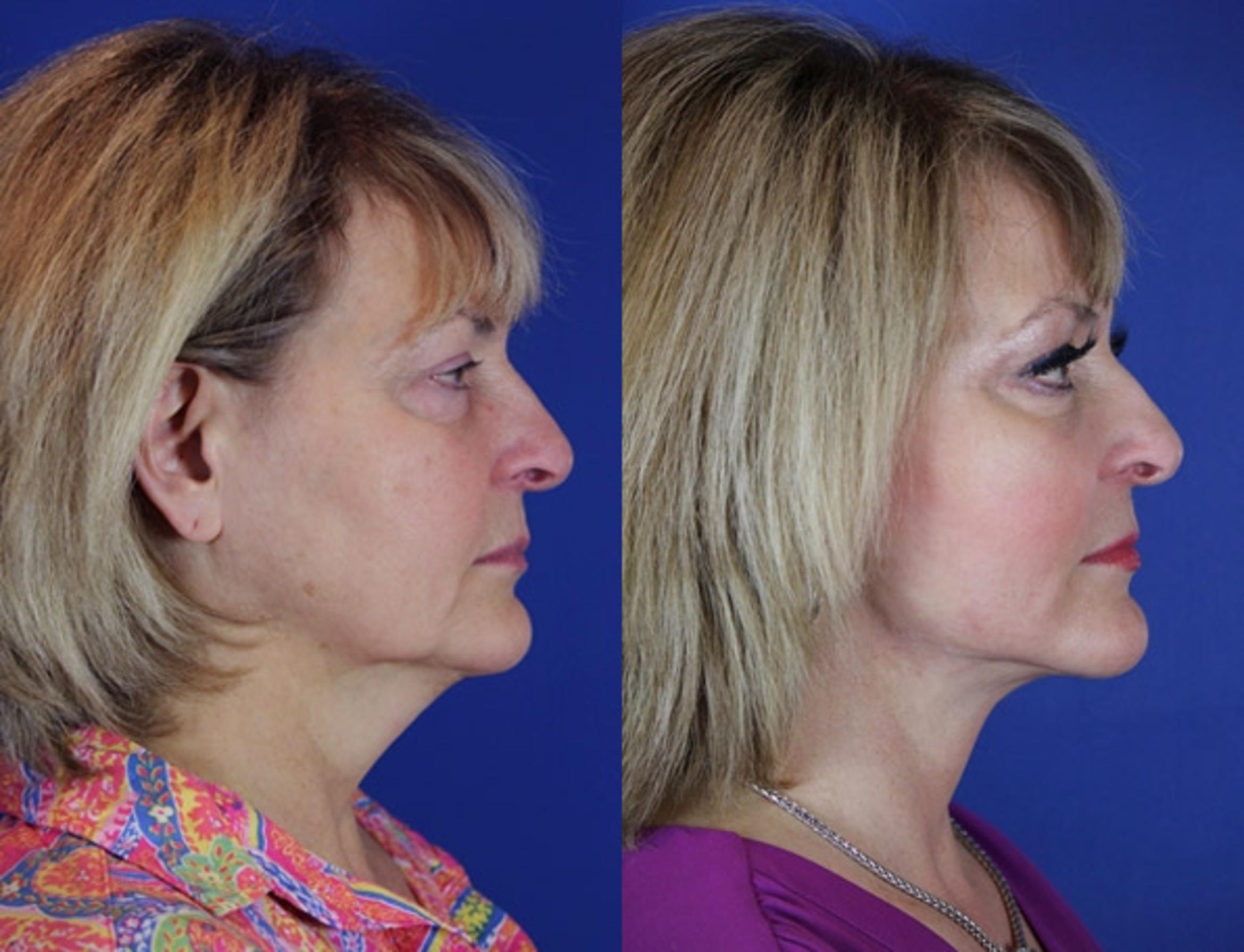 Facelift / Reflection Lift Case 54 Before & After Right Side | Brentwood, TN | Youthful Reflections