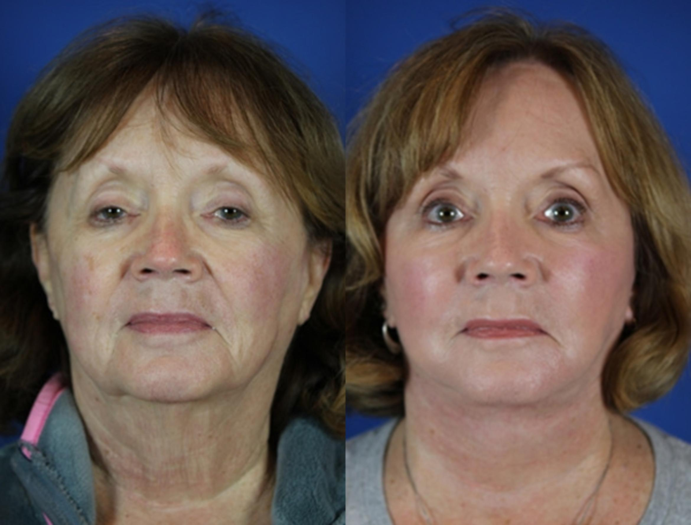Facelift / Reflection Lift Case 55 Before & After Front | Brentwood, TN | Youthful Reflections