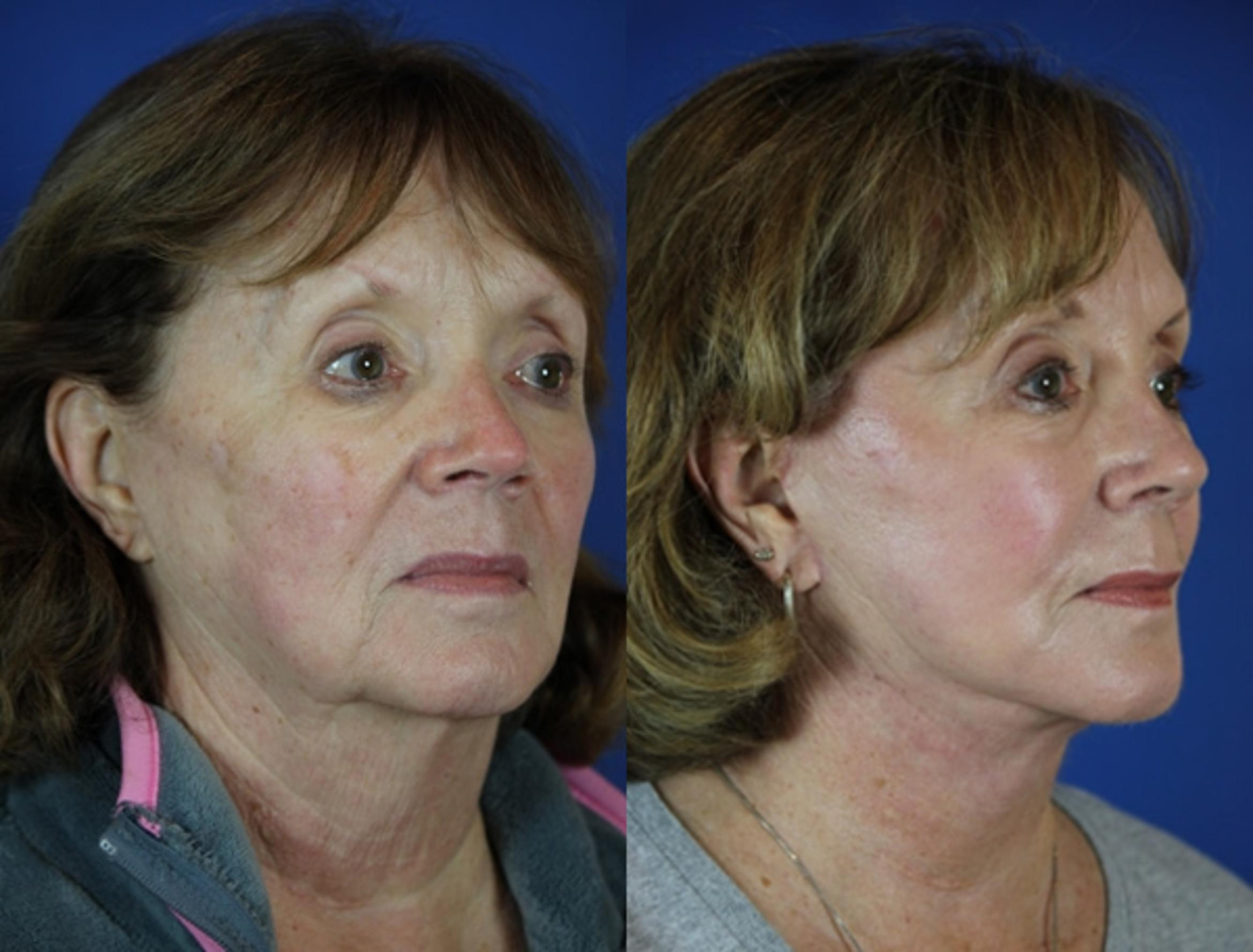 Facelift / Reflection Lift Case 55 Before & After Right Oblique | Brentwood, TN | Youthful Reflections