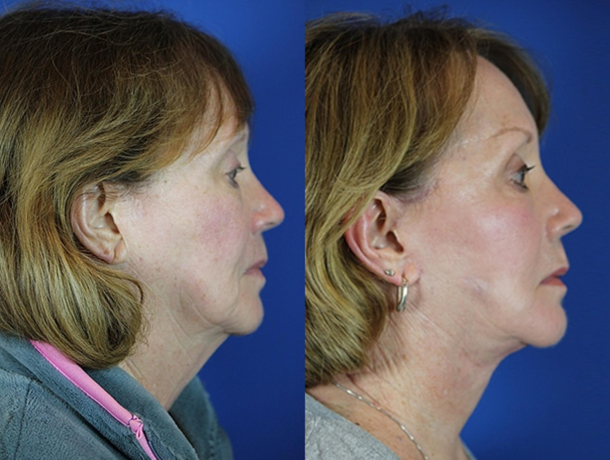 Facelift / Reflection Lift Case 55 Before & After Right Side | Brentwood, TN | Youthful Reflections