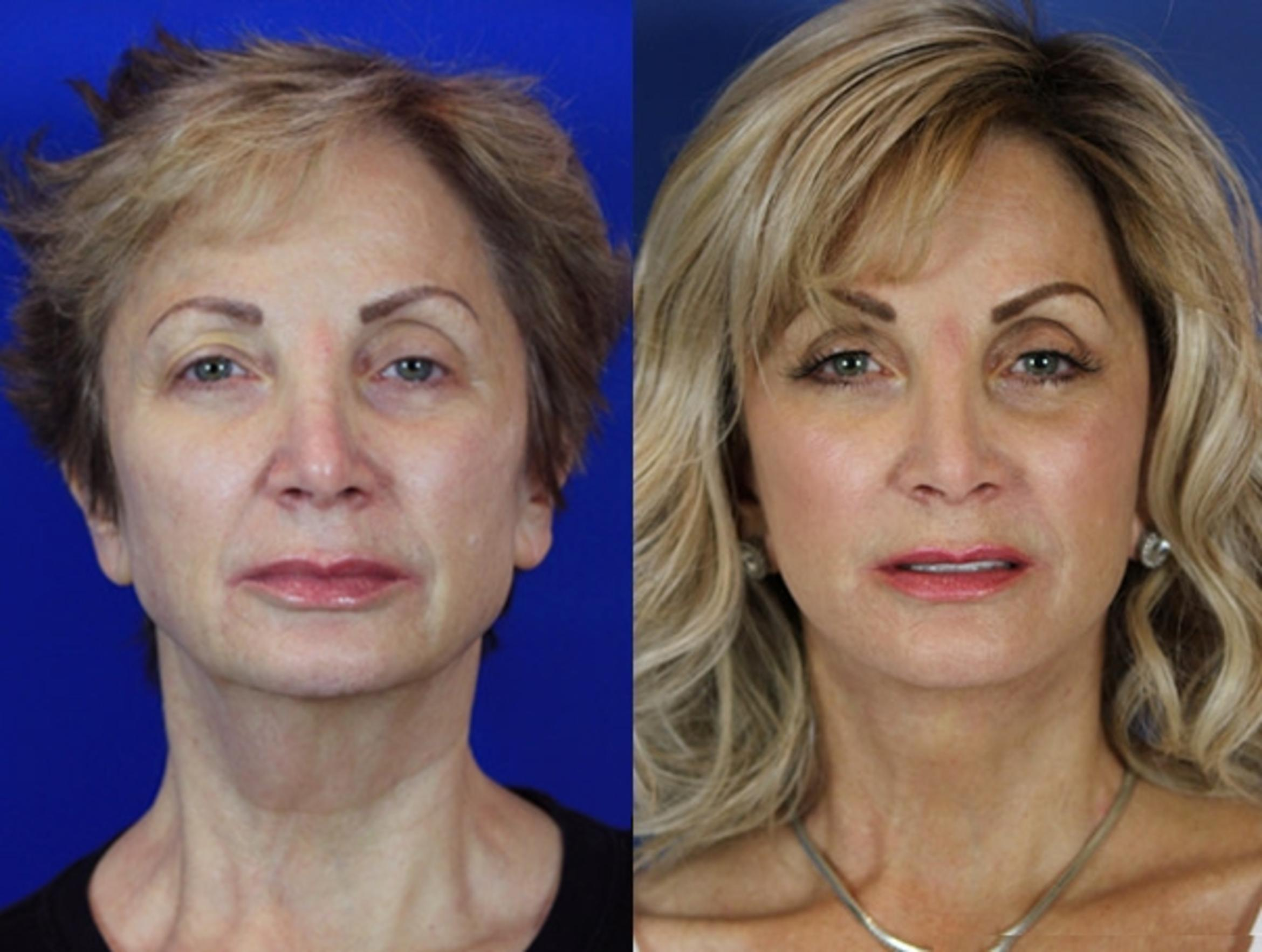 Facelift / Reflection Lift Case 56 Before & After Front | Brentwood, TN | Youthful Reflections