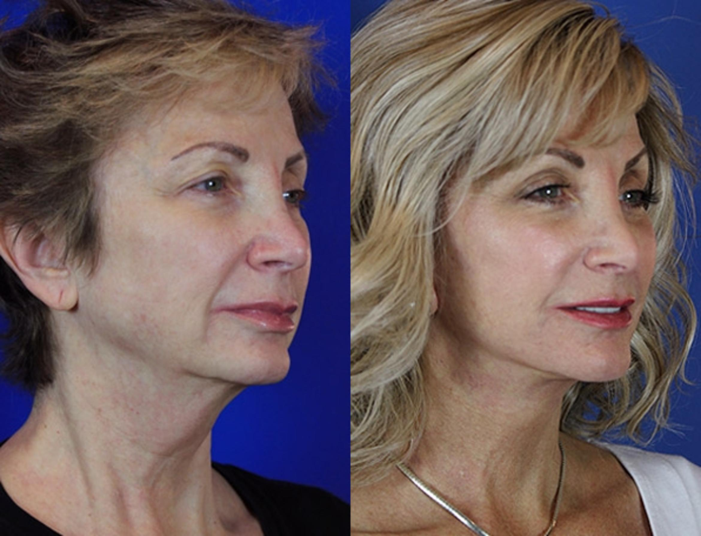 Facelift / Reflection Lift Case 56 Before & After Right Oblique | Brentwood, TN | Youthful Reflections