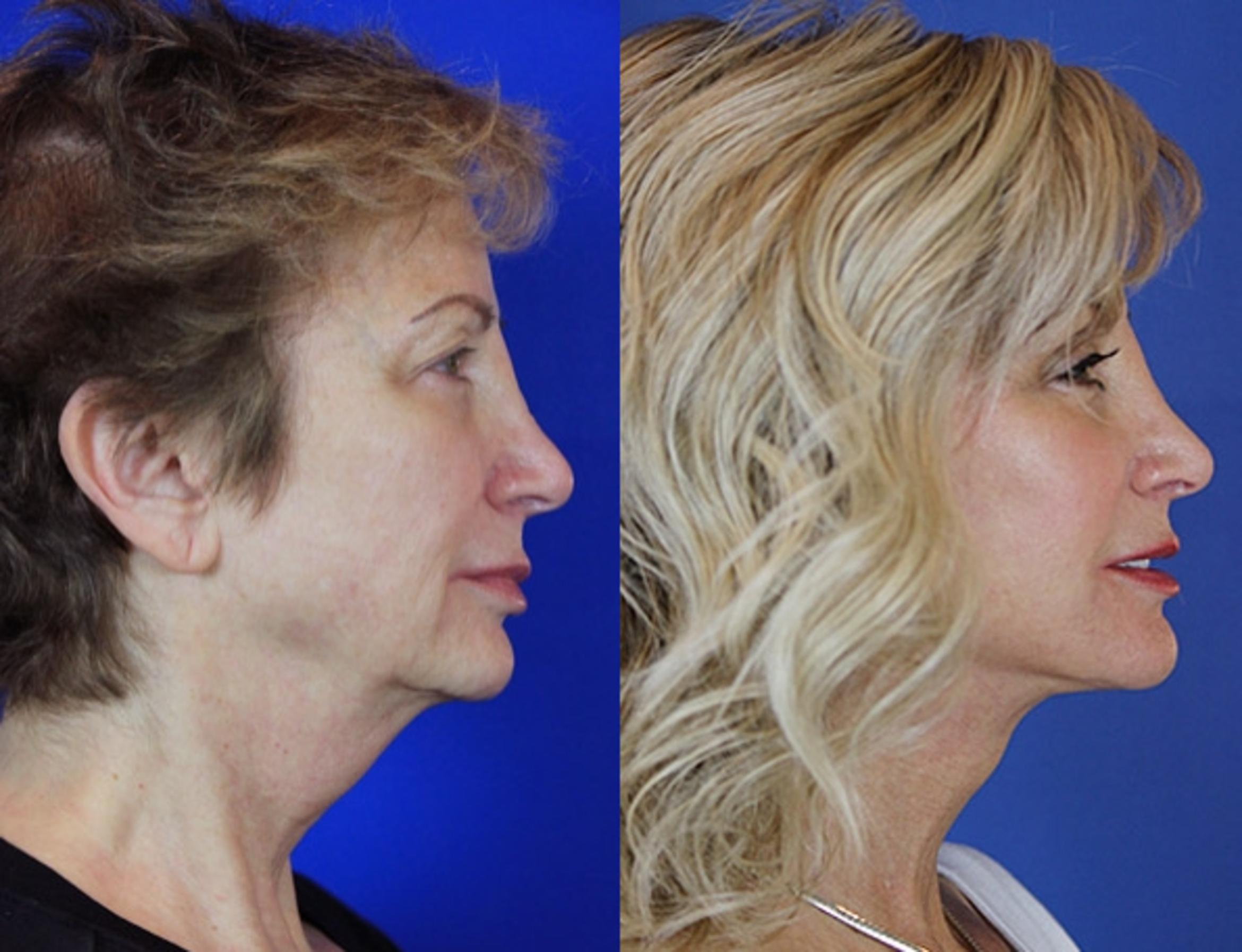 Facelift / Reflection Lift Case 56 Before & After Right Side | Brentwood, TN | Youthful Reflections