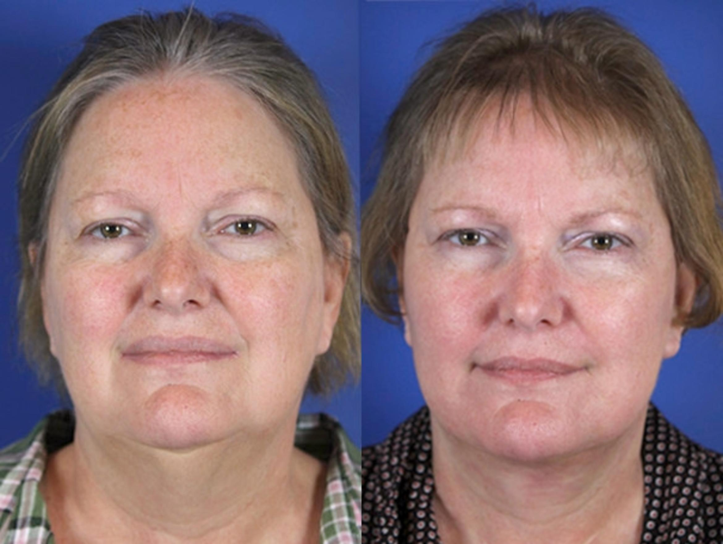 Facelift / Reflection Lift Case 58 Before & After Front | Brentwood, TN | Youthful Reflections