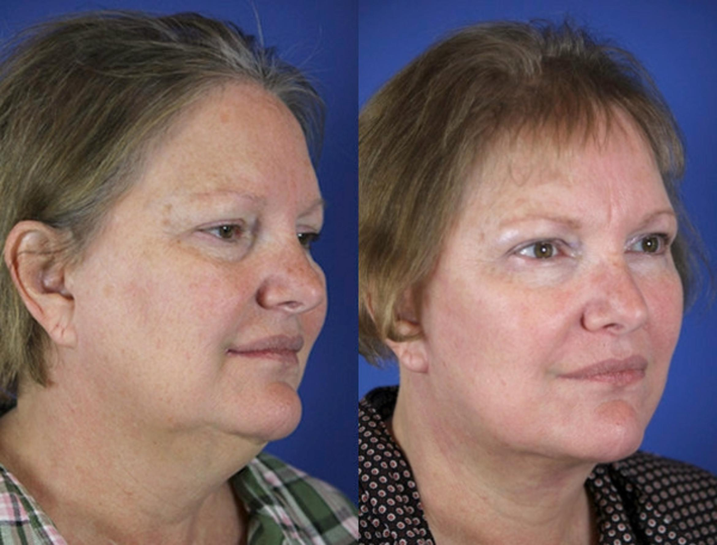 Facelift / Reflection Lift Case 58 Before & After Right Oblique | Brentwood, TN | Youthful Reflections