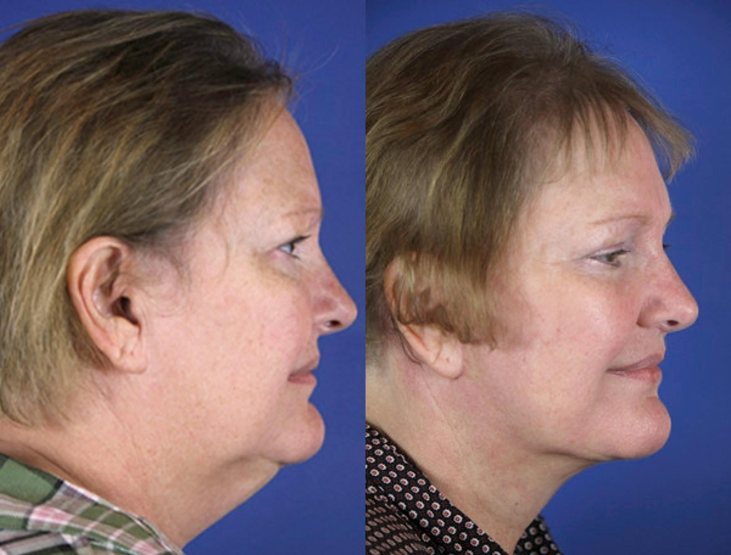 Facelift / Reflection Lift Case 58 Before & After Right Side | Brentwood, TN | Youthful Reflections