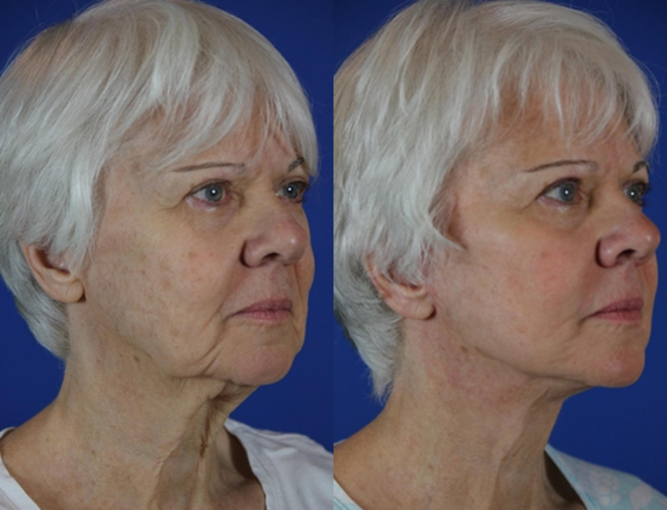Facelift / Reflection Lift Case 59 Before & After Right Oblique | Brentwood, TN | Youthful Reflections