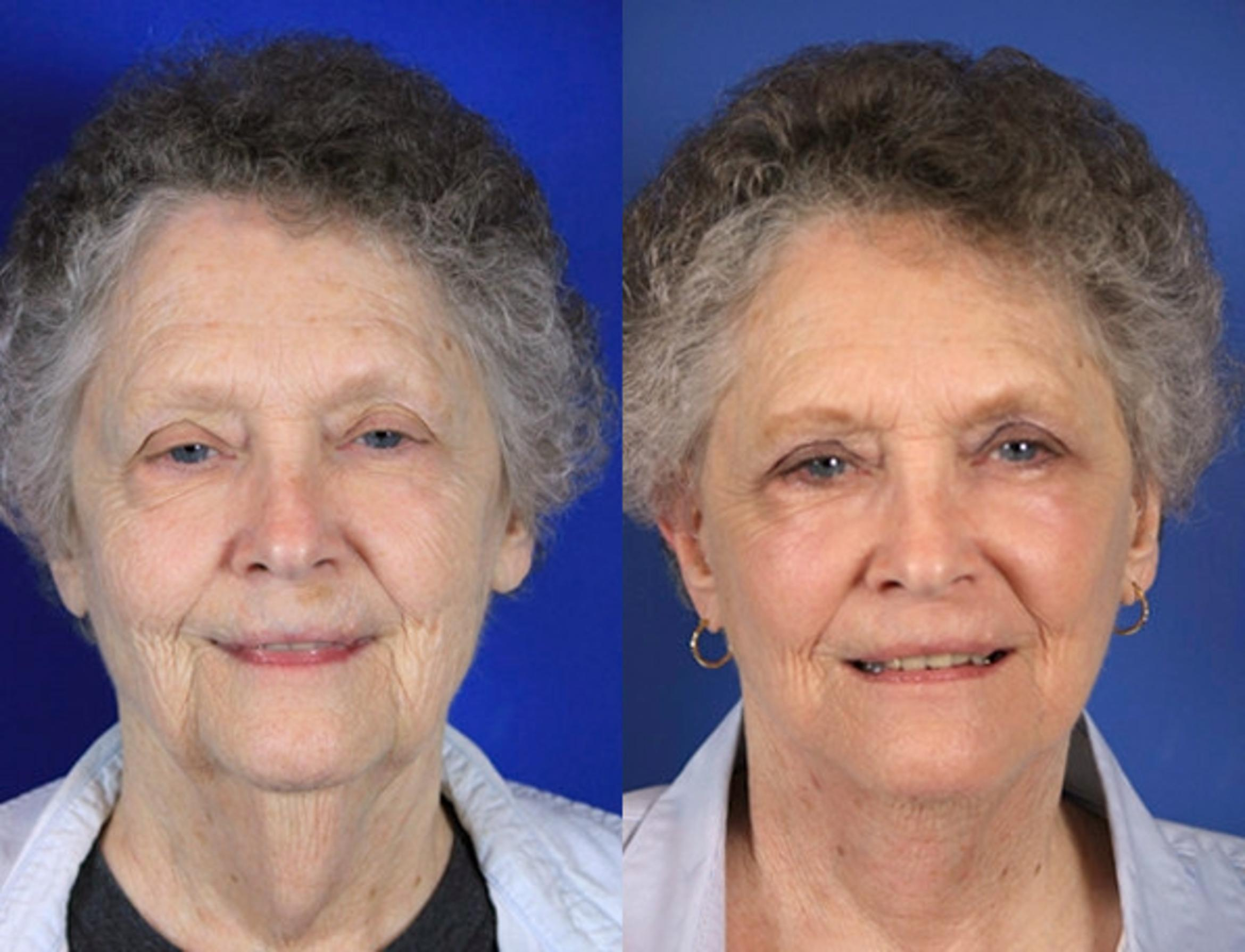 Facelift / Reflection Lift Case 60 Before & After Front | Brentwood, TN | Youthful Reflections
