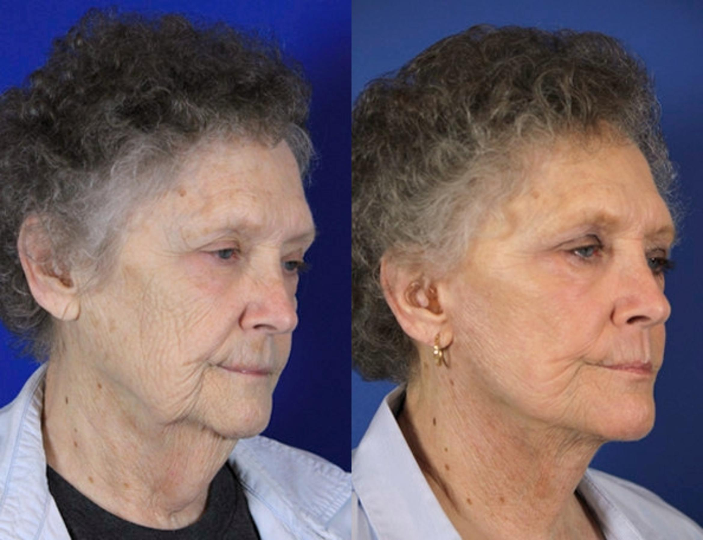 Facelift / Reflection Lift Case 60 Before & After Right Oblique | Brentwood, TN | Youthful Reflections
