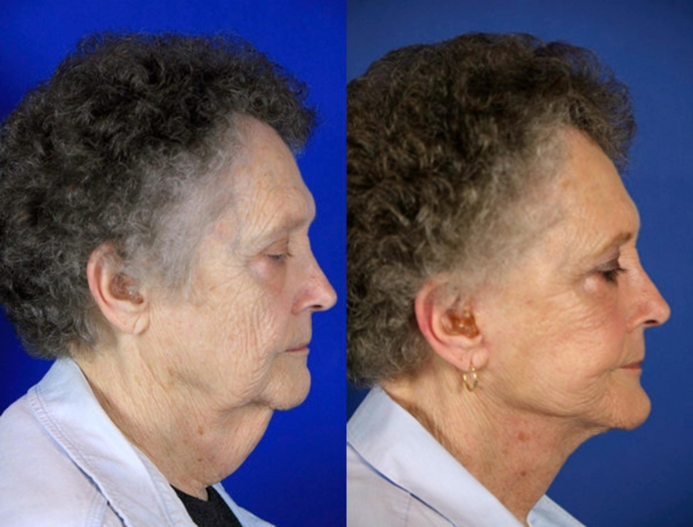 Facelift / Reflection Lift Case 60 Before & After Right Side | Brentwood, TN | Youthful Reflections