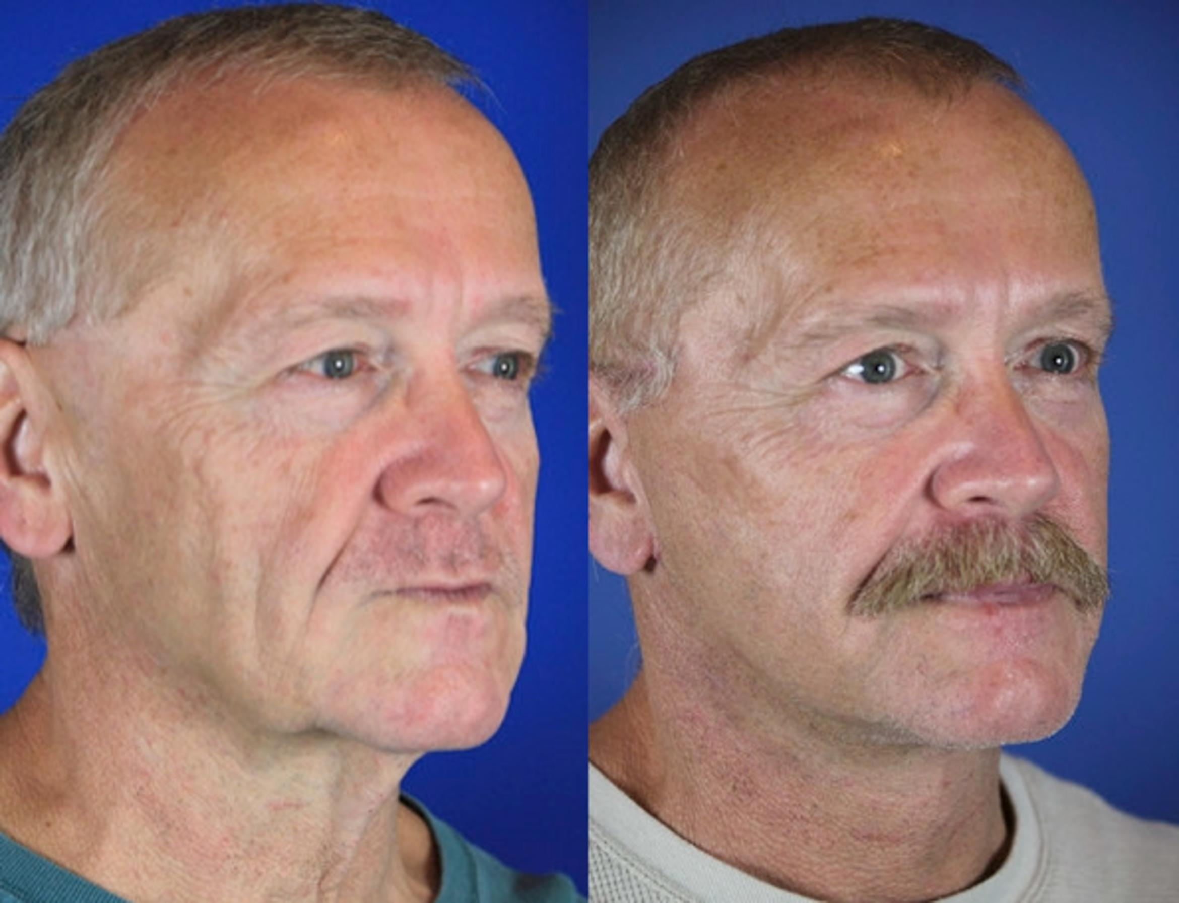 Facelift / Reflection Lift Case 62 Before & After Right Oblique | Brentwood, TN | Youthful Reflections